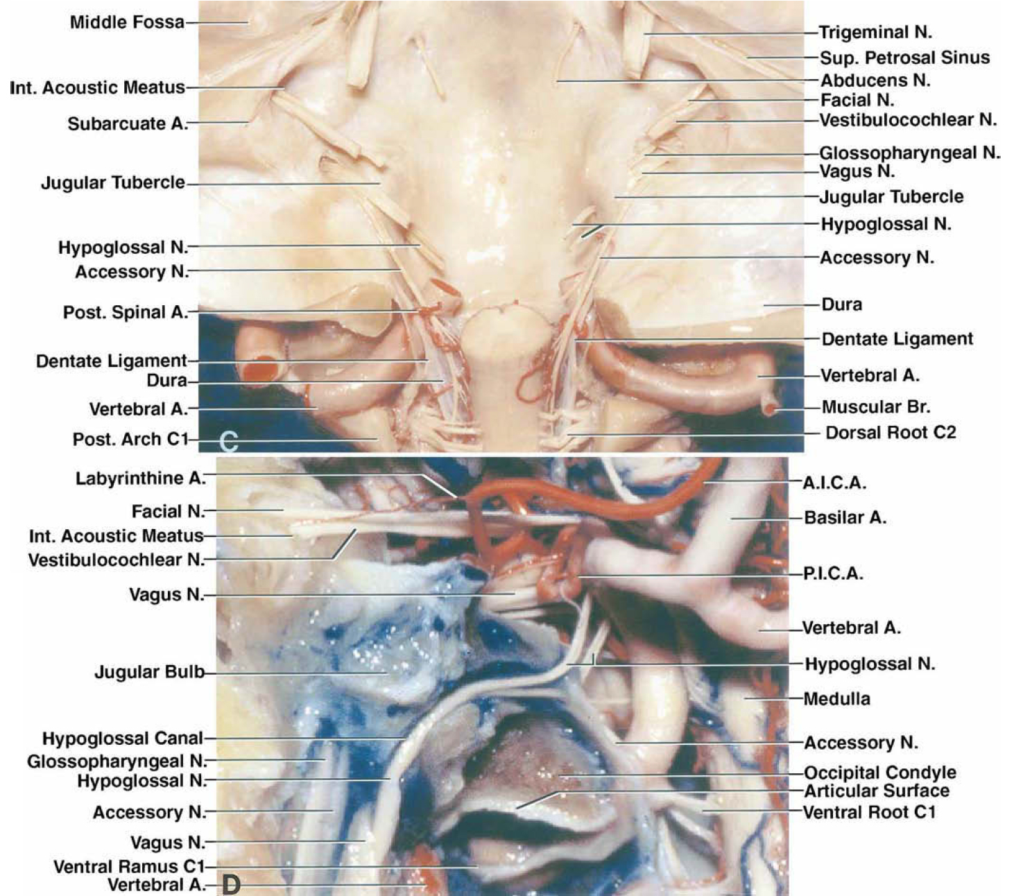 FIG. 5. C-D. C: Anterior surface of the posterior fossa following removal of the intradural segment of the VAs and basilar artery. The skull base in front of the brainstem forms a deep trough that may be easier to reach after removal of some of the lateral bone margin of the trough formed by the occipital condyle and supracondylar bone including all or part of the jugular tubercle. D: Left-sided anterior view of a skull section coronally at the level of the right occipital condyle and the hypoglossal canal. The superior facet of C-1 and the anterior wall of the jugular foramen, internal acoustic meatus, and hypoglossal canal have been removed. The rootlets of the hypoglossal nerve originate between the medullary pyramid and the inferior olive and course behind the VA. The hypoglossal rootlets usually join to form two rootlets (superior and inferior) that enter the hypoglossal canal as separate bundles, but commonly fuse before exiting the hypoglossal canal. The nerve, after exiting the canal, courses in the interval between the ICA and the IJV and posterior to the glossopharyngeal and vagus nerves. The ventral root of C-1 penetrates the dura and hugs the lower margin of the VA as it crosses the posterior arch of the atlas. The glossopharyngeal, vagus, and accessory nerves penetrate the dura on the medial side of the jugular bulb. The PICA passes backward between the upper and lower hypoglossal rootlets. A. = artery; A.I.C.A. = anterior inferior cerebellar artery; Ant. = anterior; Br. = branch; Int. = internal; N. = nerve; Post. = posterior; Sup. = superior.