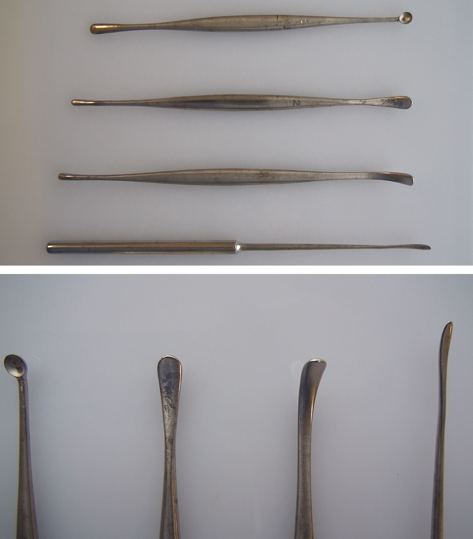 Figure 7: Once the burr holes are created, the inner table bone fragments can be removed with a bone curette, or a #1 Penfield dissector. The dura is typically thoroughly stripped from the overlying inner table using a #3 Penfield. The Penfield instruments are among the most useful instruments for cranial opening and #1 and #3 dissectors are commonly used. The Penfield dissectors are demonstrated in these images; their numbers correspond to their order from top to bottom (upper image and left to right (lower image).