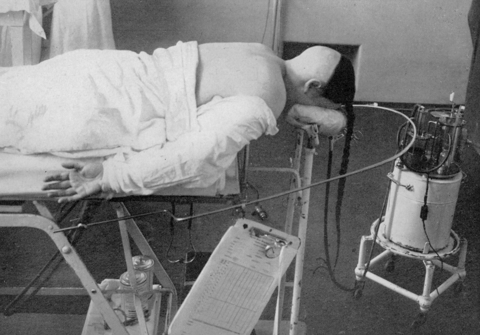 Figure 1: A patient of Harvey Cushing's is shown positioned on the operating room table to undergo resection of her acoustic neuroma. Note the anesthesia machine and the note pad used for recording anesthesia details (circa ~1930)(Photo courtesy of the Cushing Brain Tumor Registry at Yale University.)