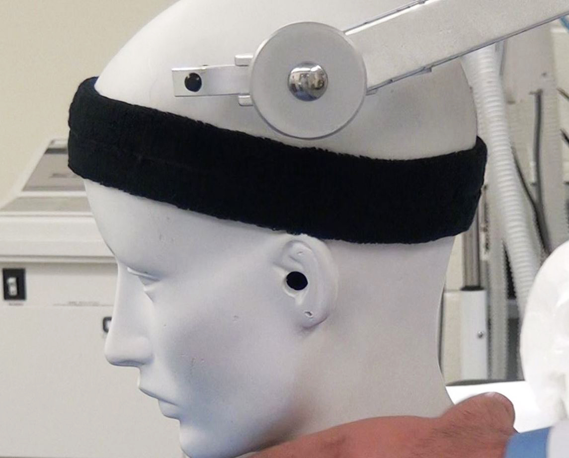 Figure 2: Improper placement of the pins outside the sweatband area can significantly compromise fixation.