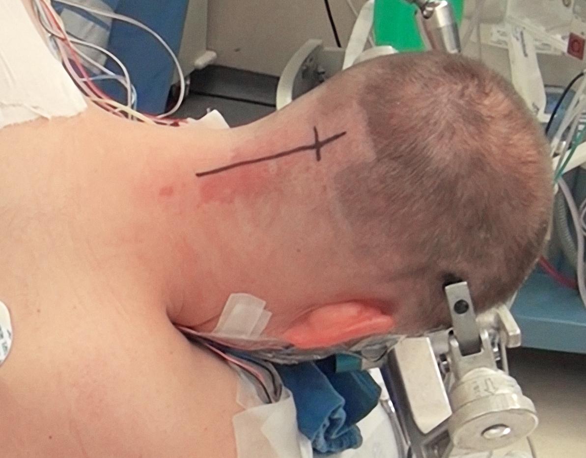 Figure 9: Skull fixation for a midline suboccipital craniotomy.