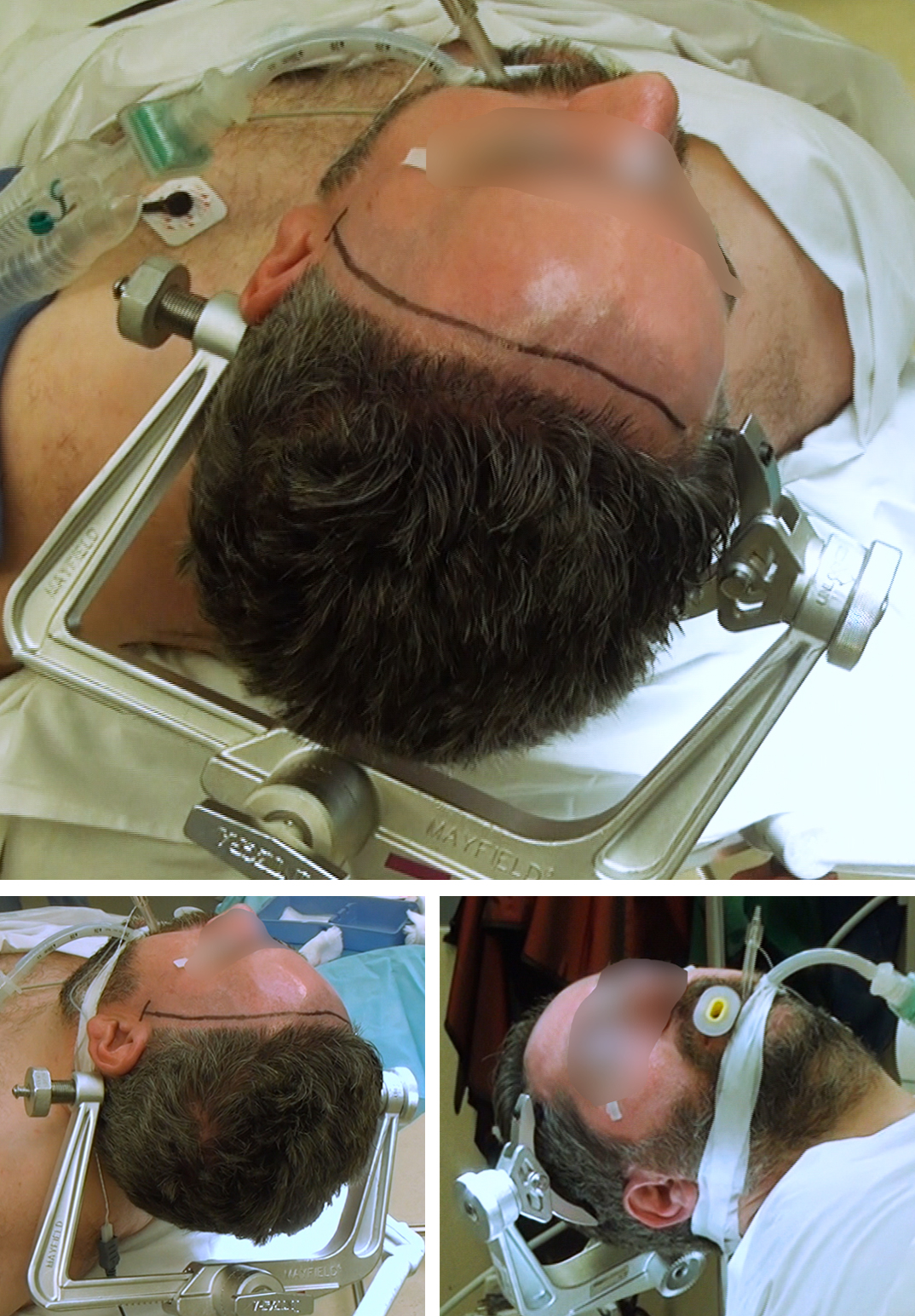Figure 6: The position of the head for pterional and orbitozygomatic craniotomies is shown. The single pin is placed behind the ear (left lower image) over the mastoid bone. The double-pin arm is situated over the contralateral superior temporal line (right lower image). This setup implants the pins furthest away from the incision. The malar eminence is the highest point on the head, so that the frontal lobe is mobilized away from the anterior fossa floor using gravity. The pins should not be placed within the temporalis muscle to avoid fixation failure.  The closer the lesion to the midline (anterior communicating artery aneurysm and tuberculum sella meningioma), the less the head is turned (30 degree turn). The more the lesion is away from the midline (middle cerebral artery aneurysm and lateral sphenoid wing meningioma), the more the head is turned (45 degree turn). This algorithm minimizes the risk of the temporal lobe obscuring the operative trajectory.  Excessive head extension will complicate the operative trajectory toward an anterior cranial base lesion.