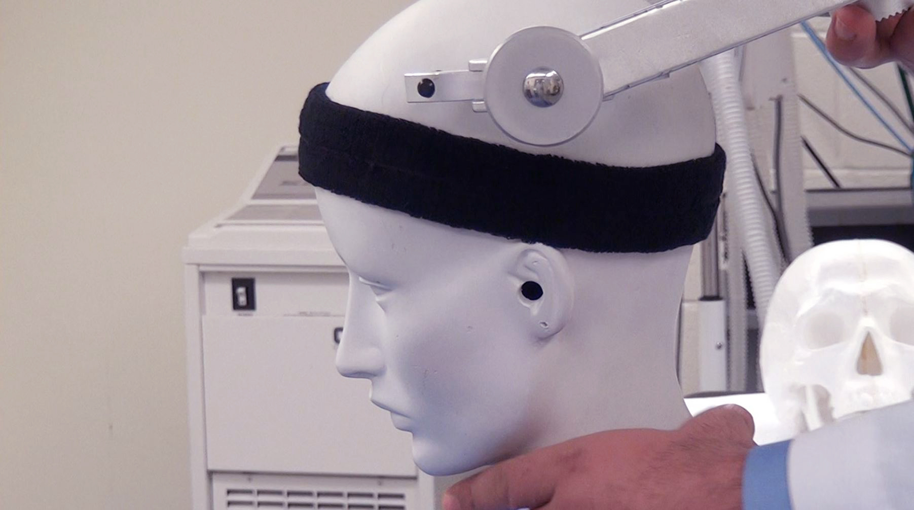 "Figure 18: The pins should be implanted on the ""sweat band"" zone around the head. Their placement outside of this zone, as seen in this image, risks fixation failure. Patients who are younger than 3 years of age should not be placed in pins and a cerebellar headrest is used. Children younger than 10 years of age should undergo head fixation using dedicated pediatric pins. Adult pins are used for patients older than 10 years. For further details, please refer to the chapter on  Skull Clamp Placement ."