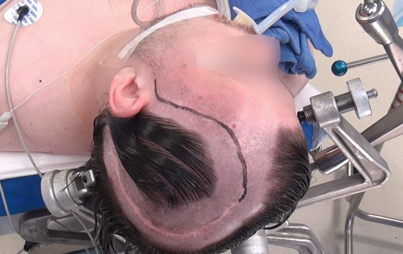 Figure 6: With this patient, the basic principles of scalp flaps were not addressed during the first surgery. The height of the flap is substantially longer than its base. During the second surgery, only the anterior limb of the incision was used (marked in black) to avoid wound complications.