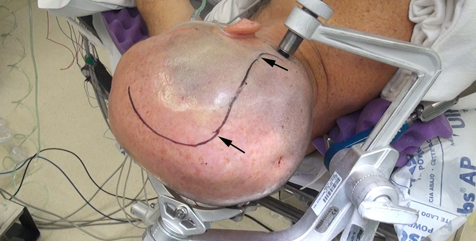 Figure 7: Repeat operations after radiation treatment are especially taxing on the healing process. In this case, the patient underwent his first surgery using a linear incision (marked with arrows). Following radiotherapy, the tumor later recurred anterior to the initial resection cavity. The linear incision allowed more flexibility for planning the incision to expose the region anterior to the resection cavity during the second operation.