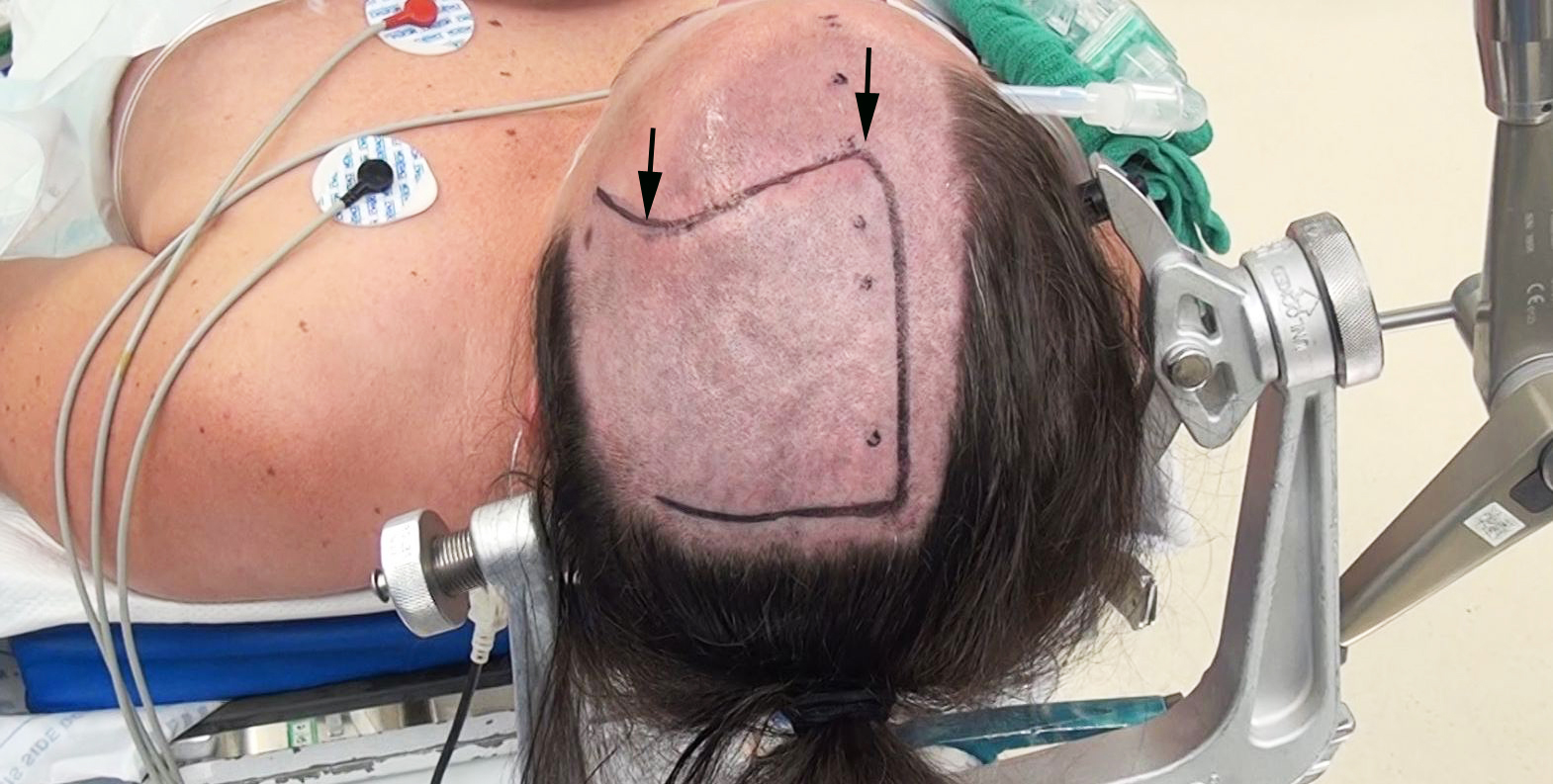 Figure 8: In this patient, the tumor recurred along the posterior aspect of the initial resection cavity. The limits of the incision for the first operation are marked with arrows. For the second operation, the linear incision was extended posteriorly using a U-shaped flap with a broad base.
