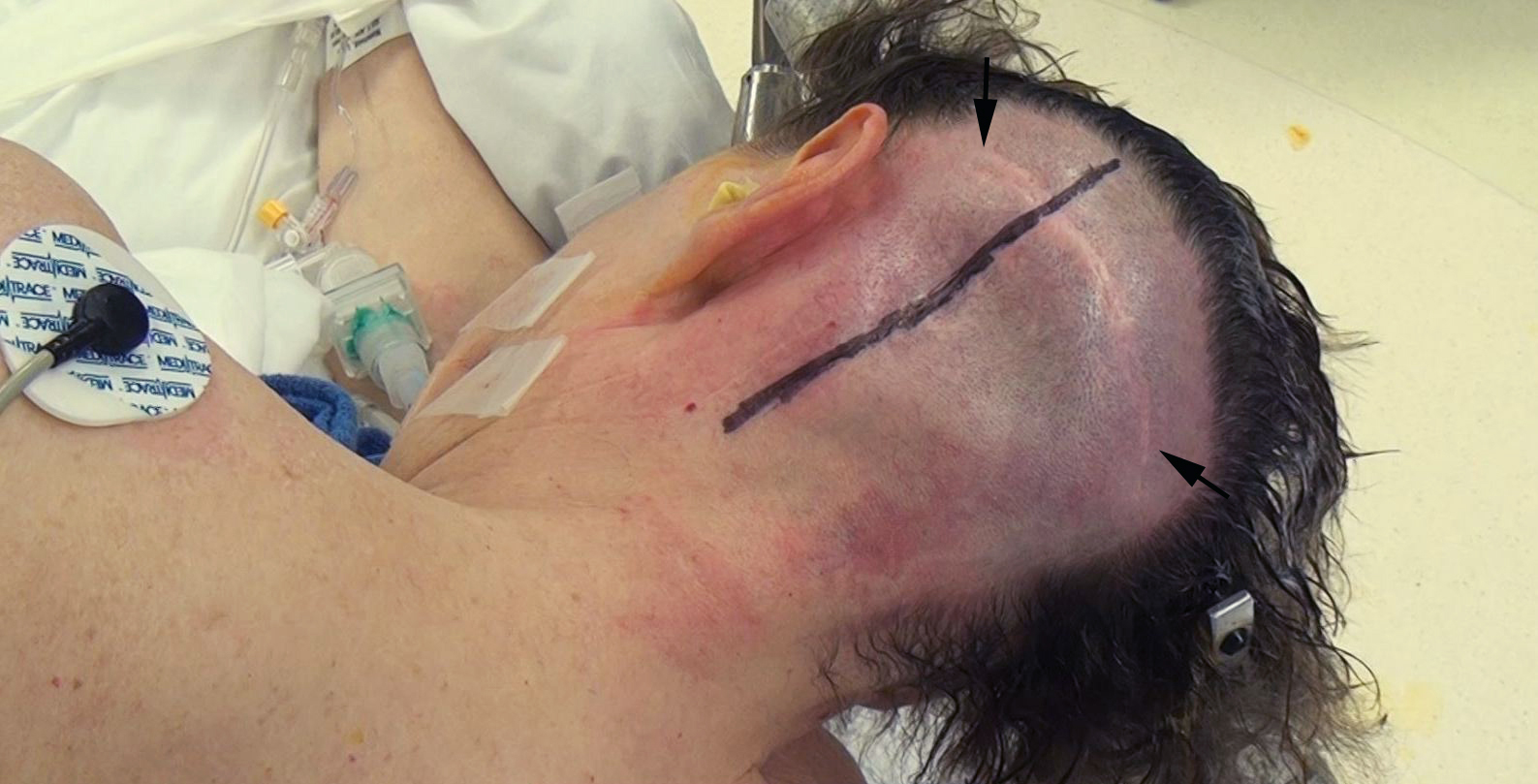 Figure 9: This patient underwent a third operation for a recurrent giant cerebellopontine angle hemangioblastoma. Previous surgeons had used perpendicular incisions (note the horizontal incision that is marked with arrows). For the third surgery, only the horizontal limb was used to maximize vascular support for wound healing.
