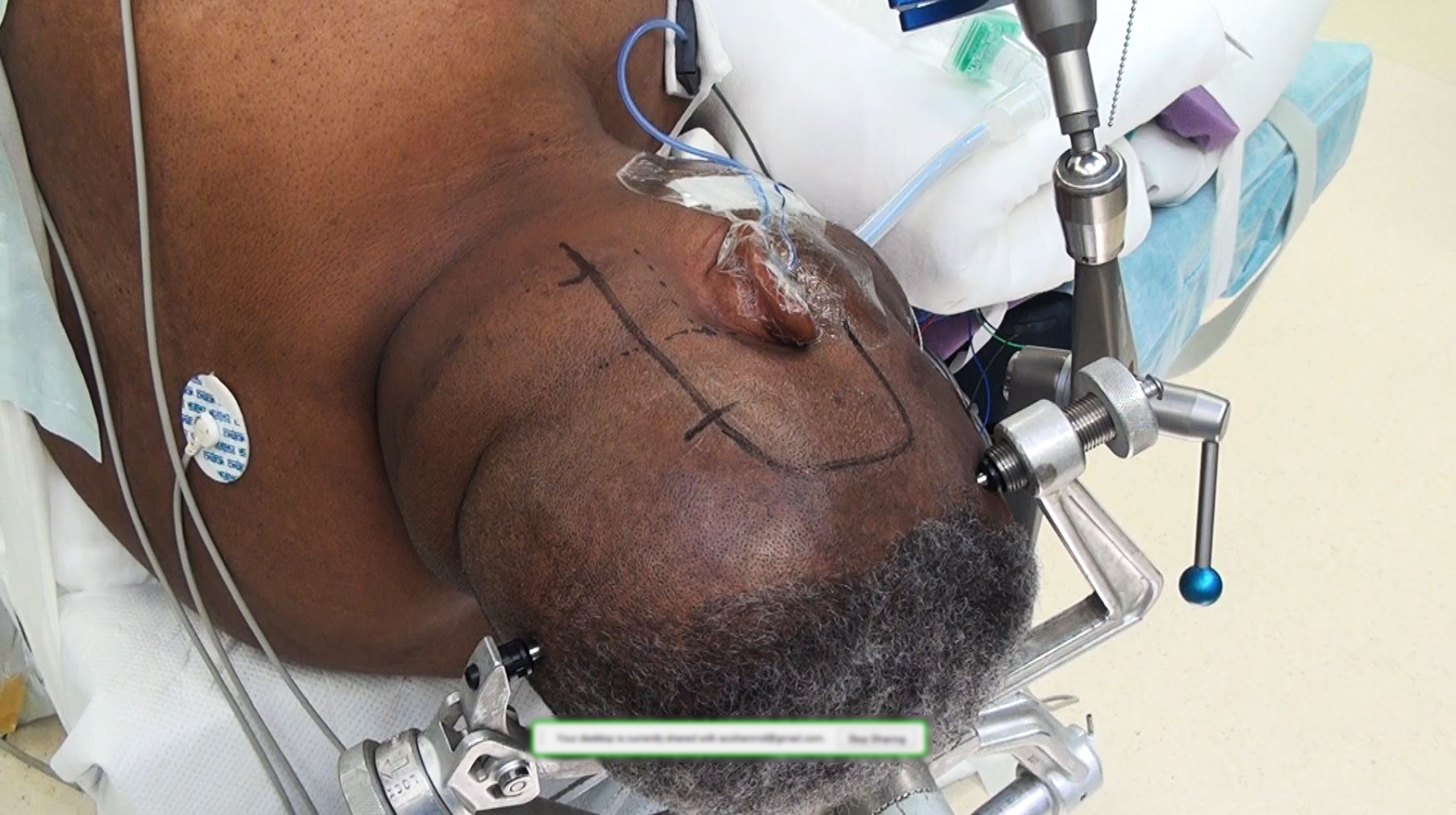 Figure 14: This photograph shows my choice of incision for combined subtemporal and retromastoid approaches, as well as for posterior petrosal osteotomies.
