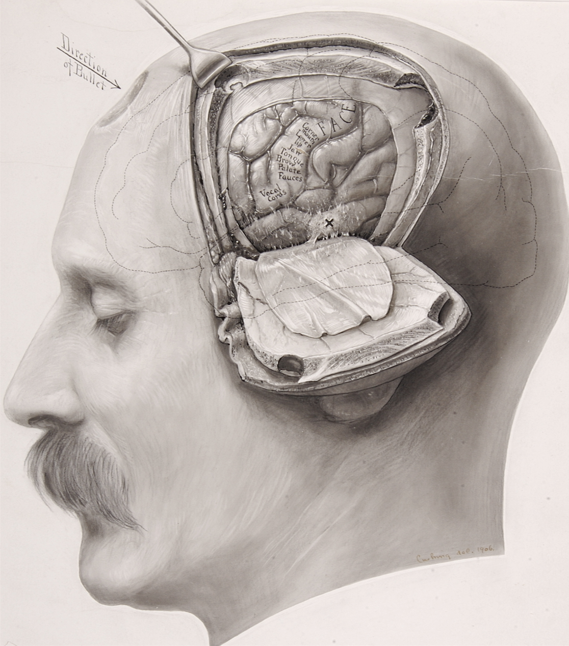 Figure 1: Harvey Cushing illustrated an osteoplastic craniotomy and cortical mapping in a patient who suffered from a gunshot wound (illustration courtesy of the Cushing Brain Tumor Registry at Yale University).