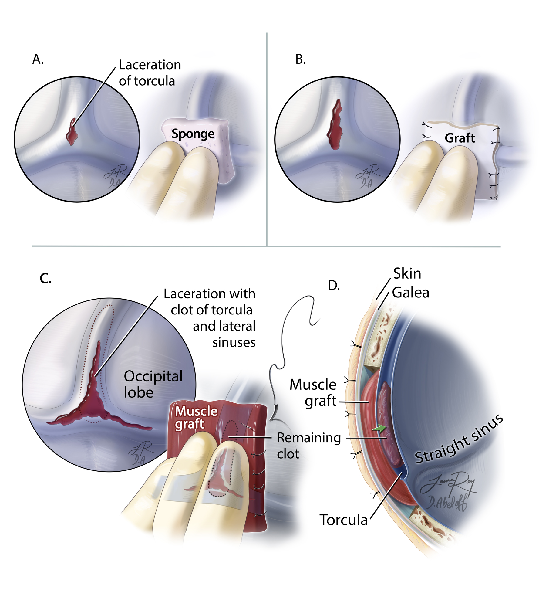 Figure 8: The steps involved in repair of a torcular tear are illustrated. For small lacerations, a piece of Gelfoam sponge is temporarily placed over the laceration covered with a cottonoid patty to control the bleeding (A, left upper). The tamponade should not occlude the dural sinuses and keep the flow in the torcula relatively preserved. A significant occlusion of the trocula can lead to sudden brain swelling, complicating any management scheme. For larger lacerations, a piece of fascia or allograft dura may be sutured in place (B, right upper corner). For extensive lacerations of the torcula, a large piece of muscle and its attached fascia are used to construct the roof of the sinus. Note that some of the clot within the sinsues should be removed before the last stitches are placed. Also, one of the more affected transverse sinuses may be unsalvageable and has to be sacrificed during the process of reconstruction (C and D, bottom panel). Aggressive removal of the intraluminal clot in a relatively relaxed brain is not advised due to the high risk of uncontrollable bleeding.