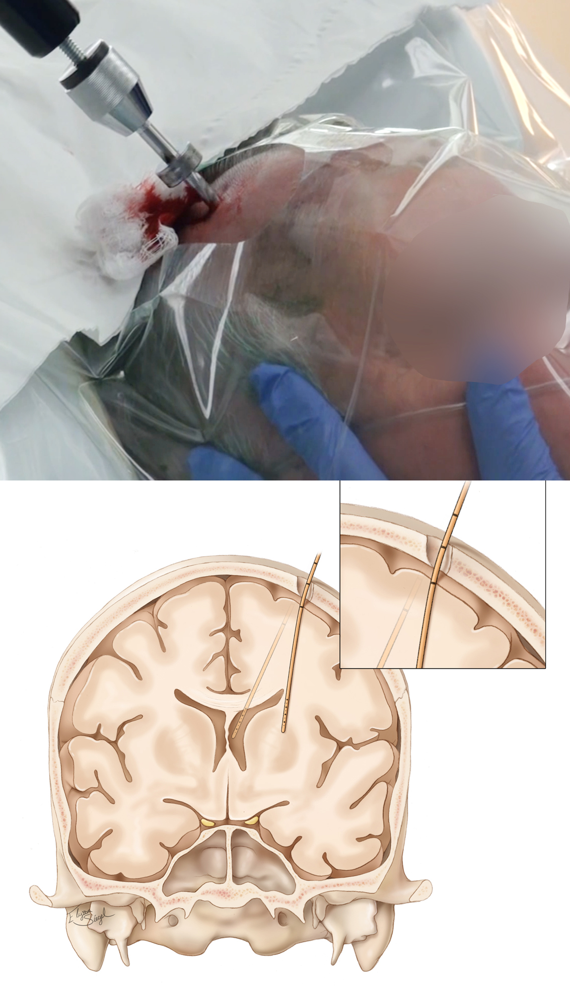Figure 4: The drill must enter the skull at a perpendicular angle and with the same trajectory as the EVD catheter (top image). This maneuver is essential since the drill's small diameter bit, together with the thickness of the skull, will determine the allowable angles or trajectories through which the catheter can enter the brain. Any slight deflection of the catheter because of an inadequate craniostomy leads to serious alterations in the final trajectory of the catheter tip (lower image). Since this deflection occurs after the catheter has entered the brain, the operator will not be cognizant of it.