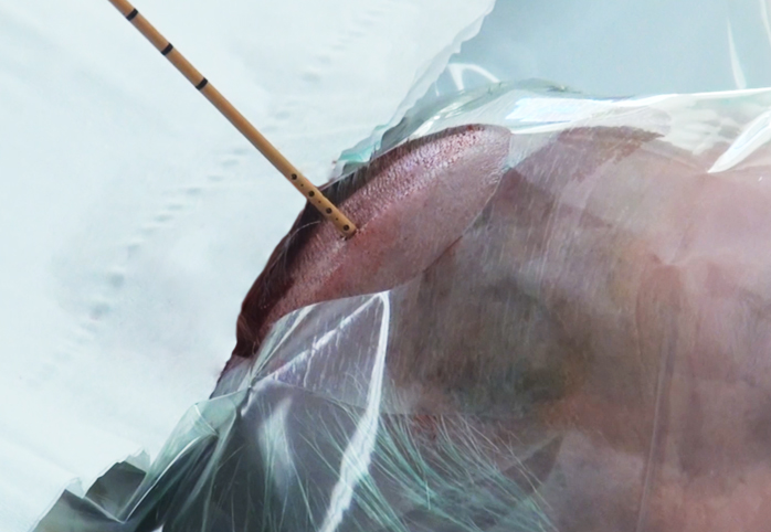 Figure 5: If the drill has not penetrated the dura, a blunt needle can be used to perform the durotomy. The drain is then passed in the planned trajectory (described above) with its stylet to a depth of 6 to 6.5cm as measured from the level of the scalp.