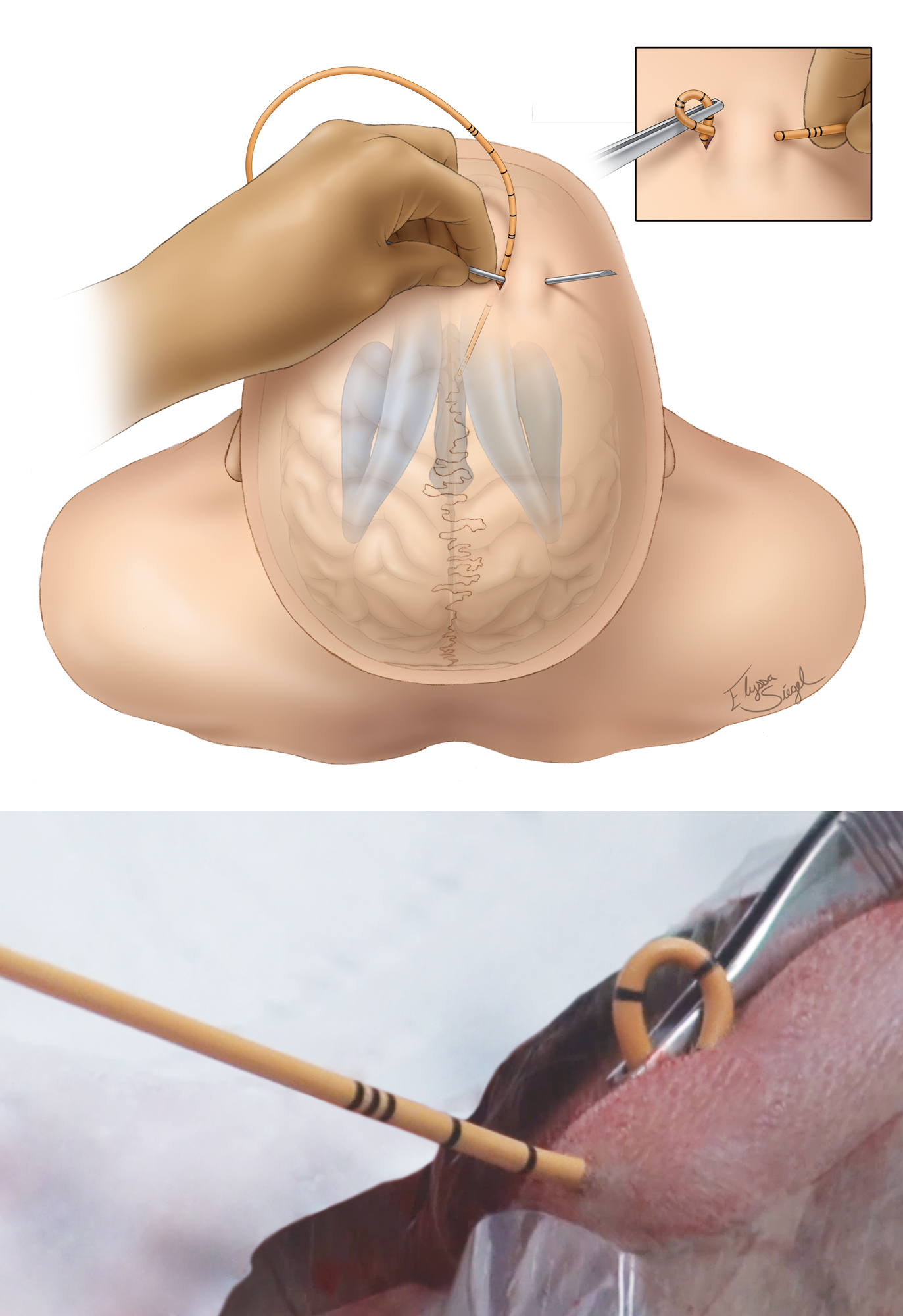 Figure 7: The drain is carefully tunneled under the galea to decrease the risk of infection. A non-toothed forceps instrument is used to hold the drain in place while this is done to minimize the risk of dislodging the catheter or inadvertently pushing it deeper into the ventricle (top inset and bottom photo).