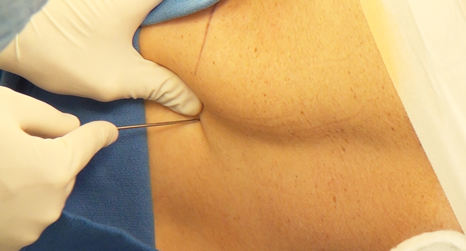 """Figure 3: The Tuohy needle is inserted at the midline and through the interspinous space with the beveled side facing cephalad. I often advance the needle in a slightly cephalad direction and follow the contours of the adjacent spinous process. If I come in contact with the lamina, I """"walk"""" the needle tip along this bone with fine adjustments until the needle """"falls into"""" the interlaminar space. Alternatively, the paraspinal technique may be used to angle the needle from lateral to medial to reach the sac."""