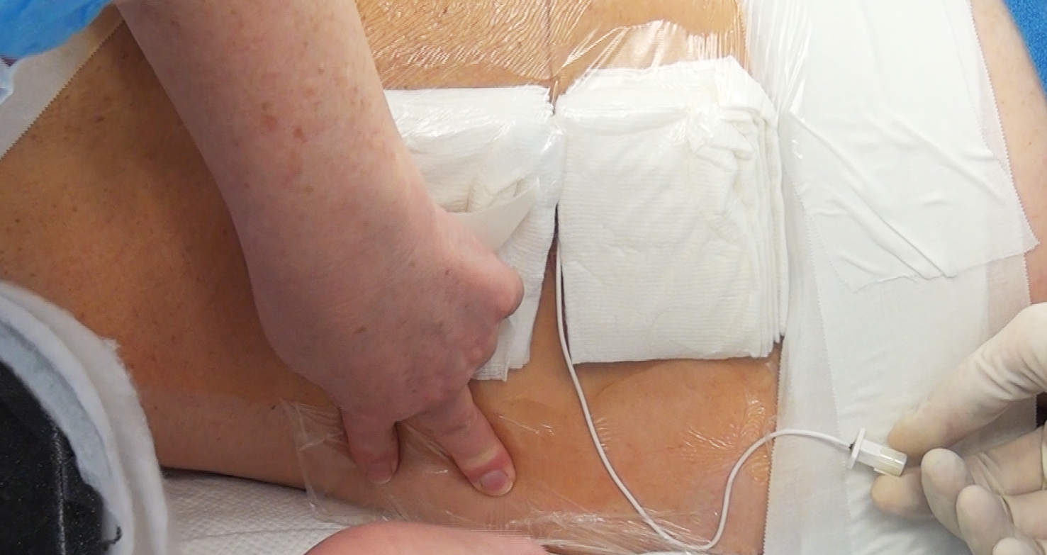 Figure 5: I usually place two pieces of sponge to straddle the catheter at its exit point on the skin to prevent its kinking. The sponges are held in position using a piece of Tegaderm. If the drainage system stops working when the patient is in the supine position, the catheter is most likely kinked near the skin exit and this area should be padded.