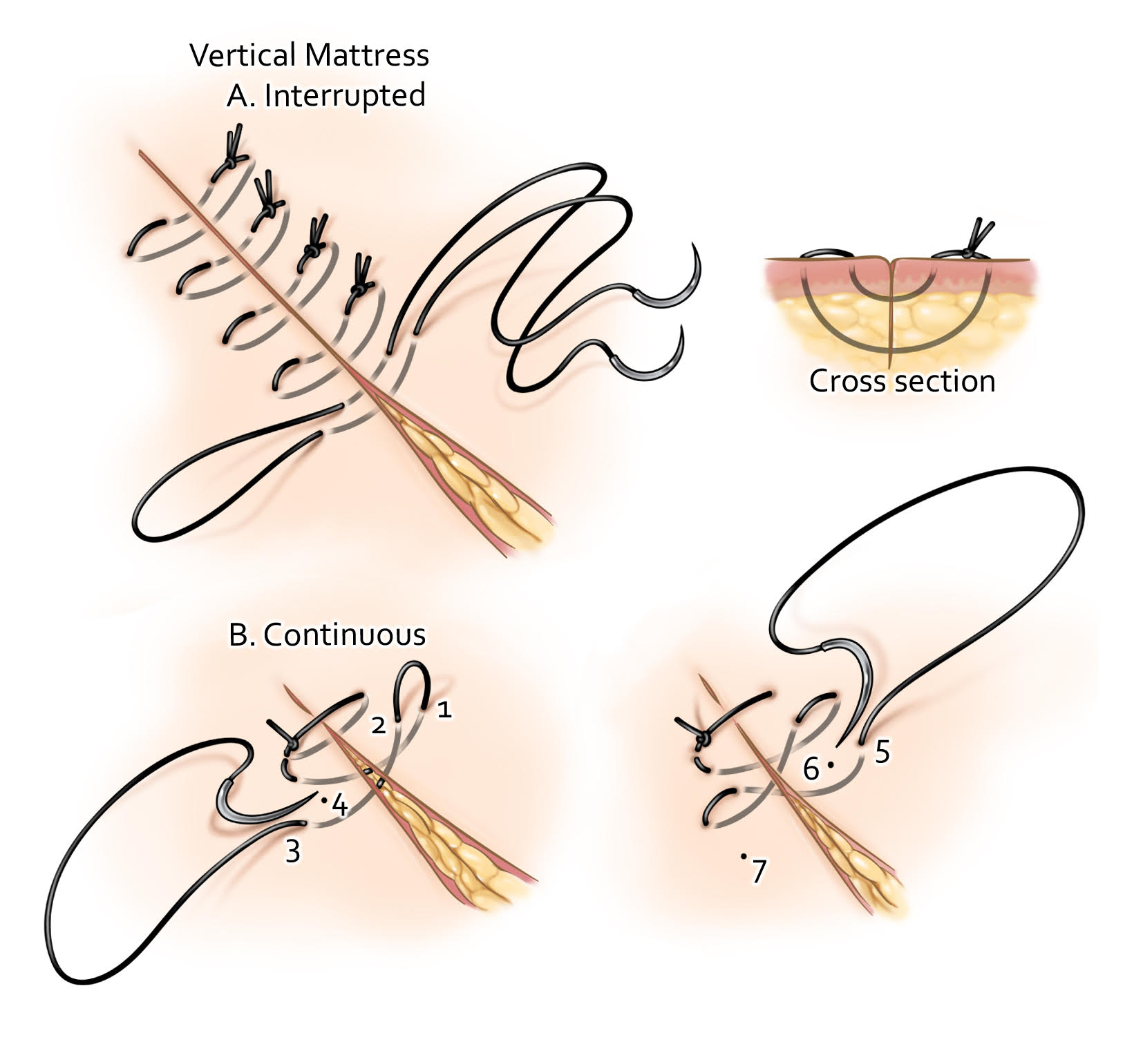 Figure 6: Vertical mattress suturing results in better eversion of the tissue and therefore can be a good strategy for augmenting wound closure when the quality of the tissues involved is tenuous. This advantage is provided by the combination of both deep dermal and epidermal suturing.  I use vertical interrupted mattress suturing for redo craniotomies where the skin edges are not as healthy and accurate approximation of the skin edges is critical for healing.