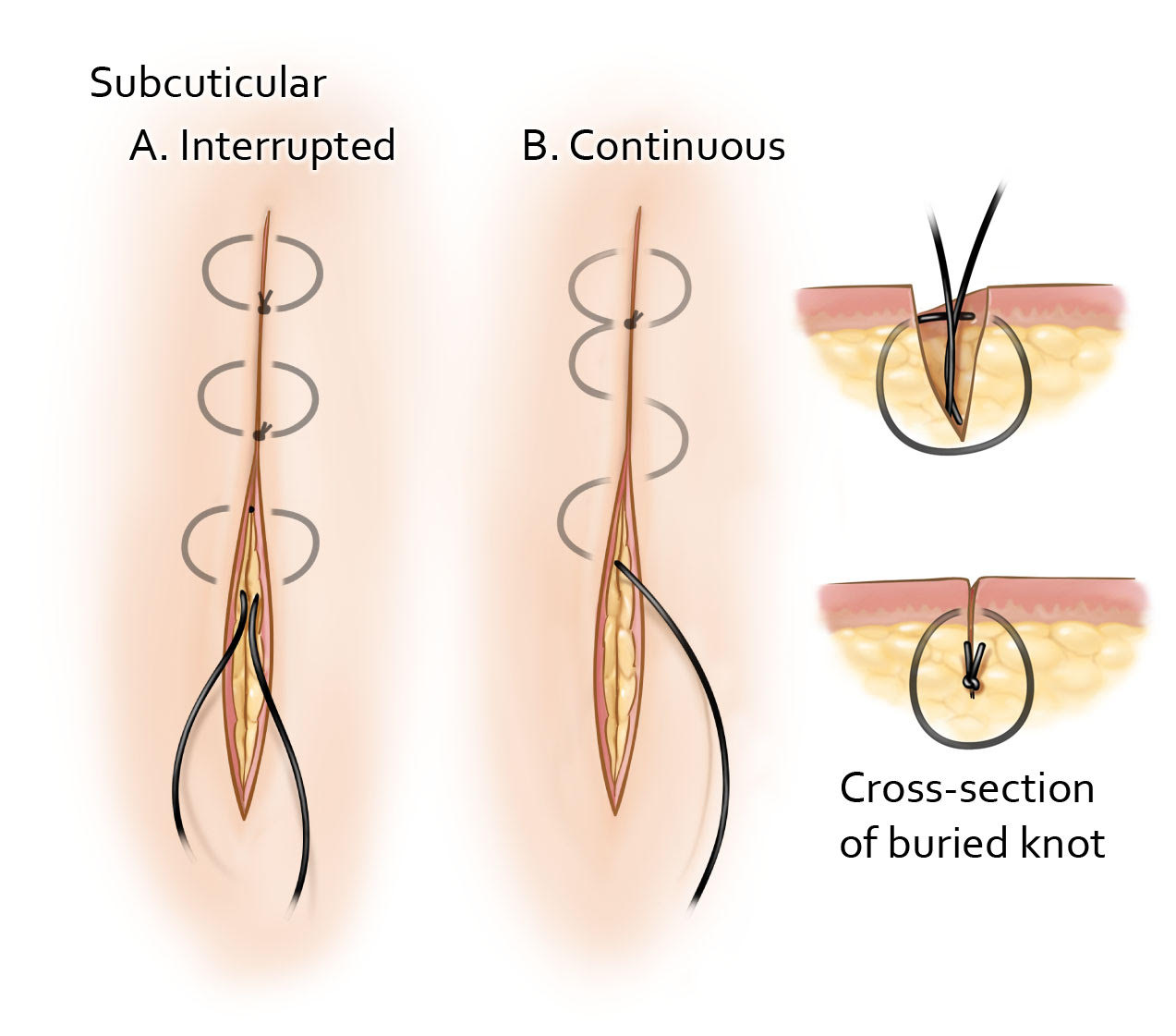 Figure 7: The subcuticular suturing technique is the standard technique for cosmetic skin closure. Both the interrupted and continuous suturing techniques involve reapproximating the dermis. The interrupted technique involves an inverted suturing technique to ensure the knot is buried. The needle should enter the subcutaneous tissue and then pass through the dermal layer before exiting again in the subcutaneous tissue. The continuous suturing technique requires an anchoring tie 2-3 mm from the apex or if a knotless technique is being used, the needle can be passed into the dermis at the apex to start the closure. The dermal approximation should be performed using uniform depth bites parallel to the incision line. Following completion of the incision line, the suture can be tied at the apex and brought through the epidermis in an exit stitch or the exit stitch can be used alone for a knotless technique.