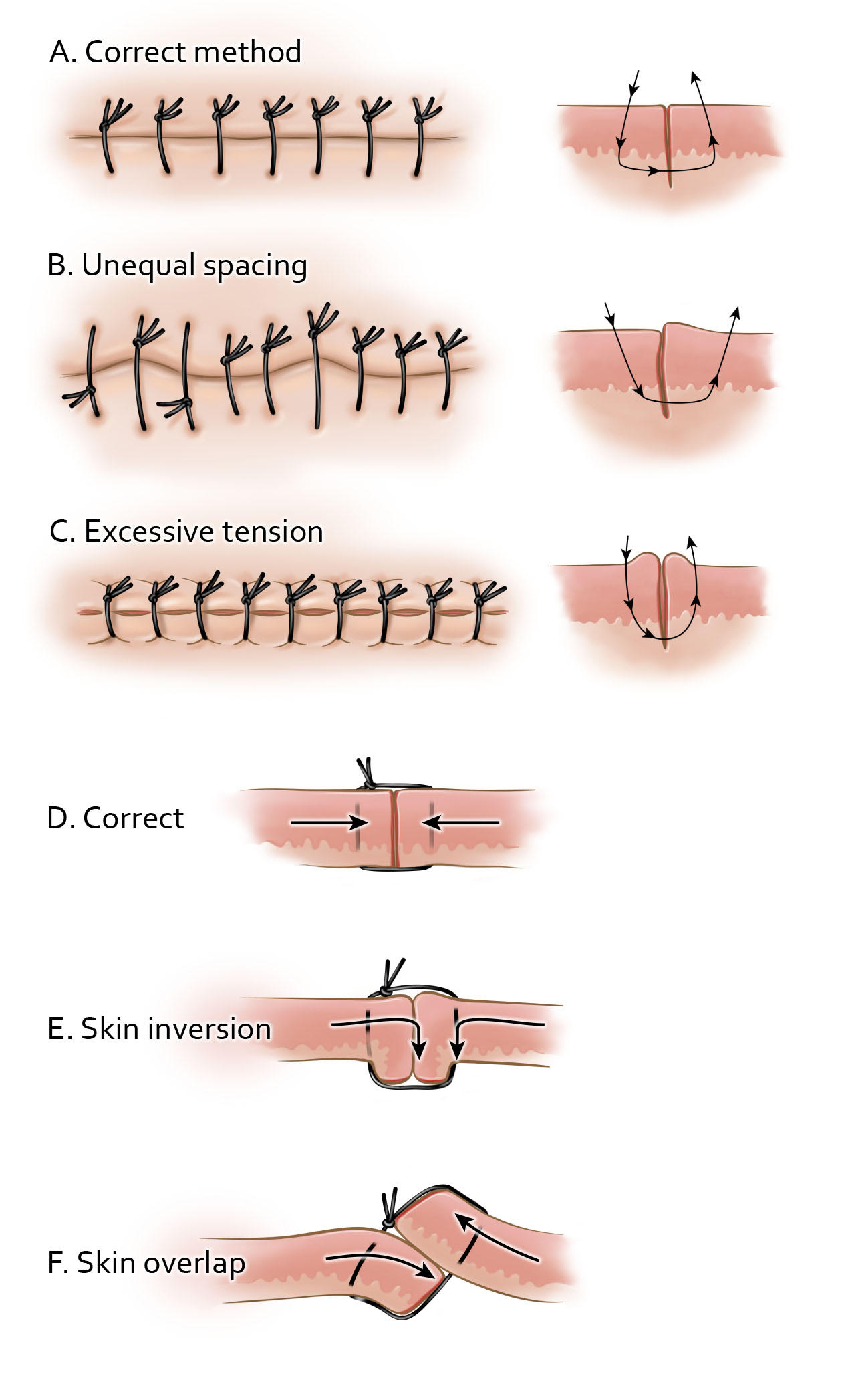 Figure 8: Achieving ideal tissue approximation requires consistent and meticulous technique. Correct simple suturing (A) will apply ideal tension across each stitch to avoid uneven approximation (B) or tissue strangulation (C). The appearance of correct tissue approximation, as well as common pitfalls are demonstrated. Skin inversion (E) and overlap (F) are some of the most common and easily avoidable errors that can seriously affect wound healing and lead to infection and other complications.
