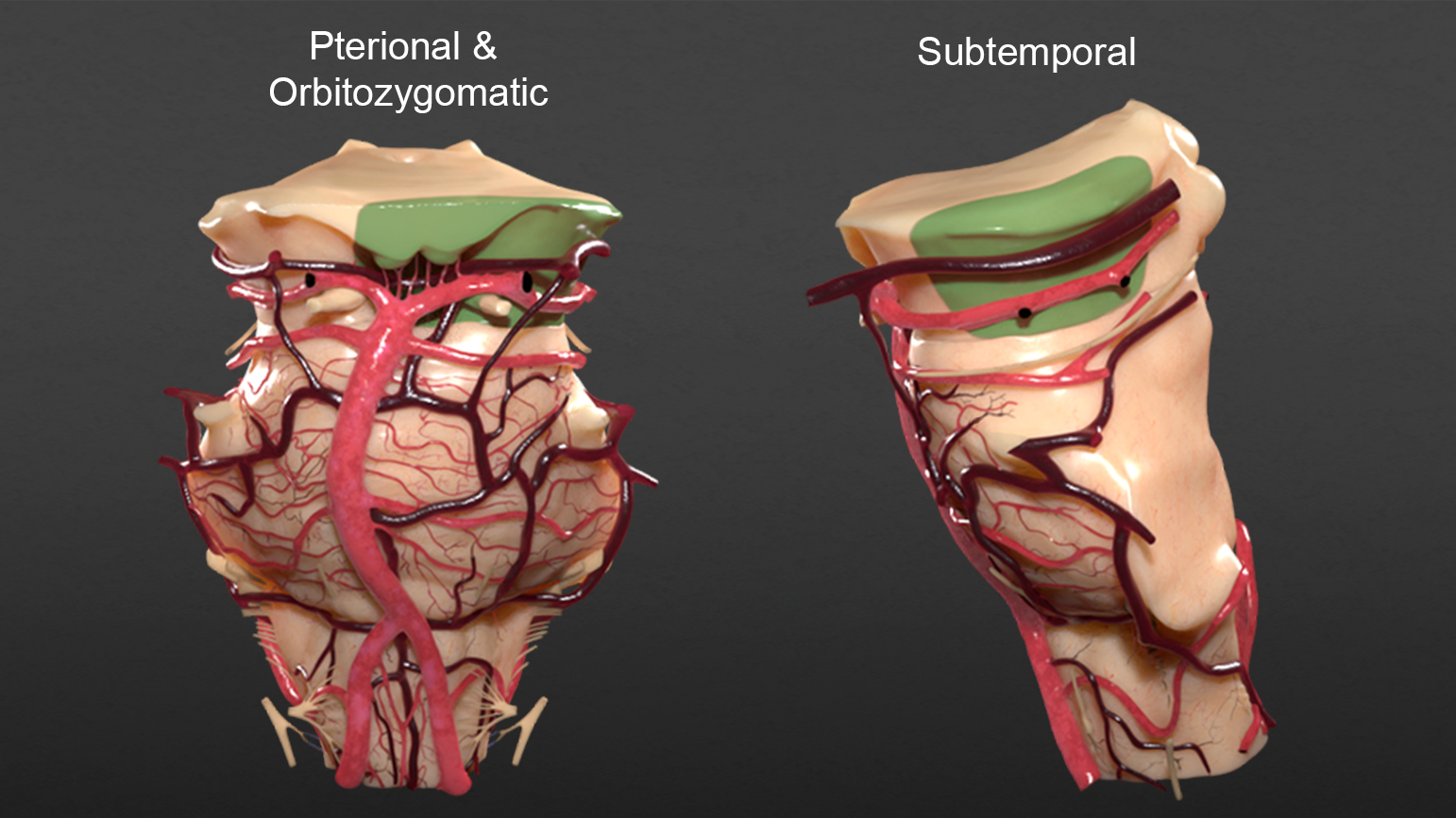 Figure 7:  The areas of exposure (green) for the pterional, orbitozygomatic, and subtemporal cranial approaches are illustrated.