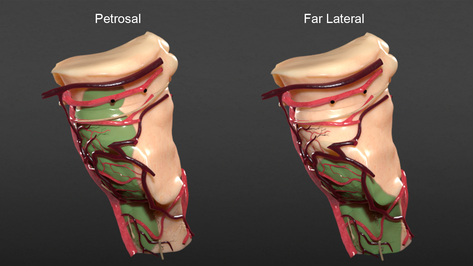Figure 8:  The areas of exposure (green) for the petrosal and far lateral cranial approaches are illustrated.