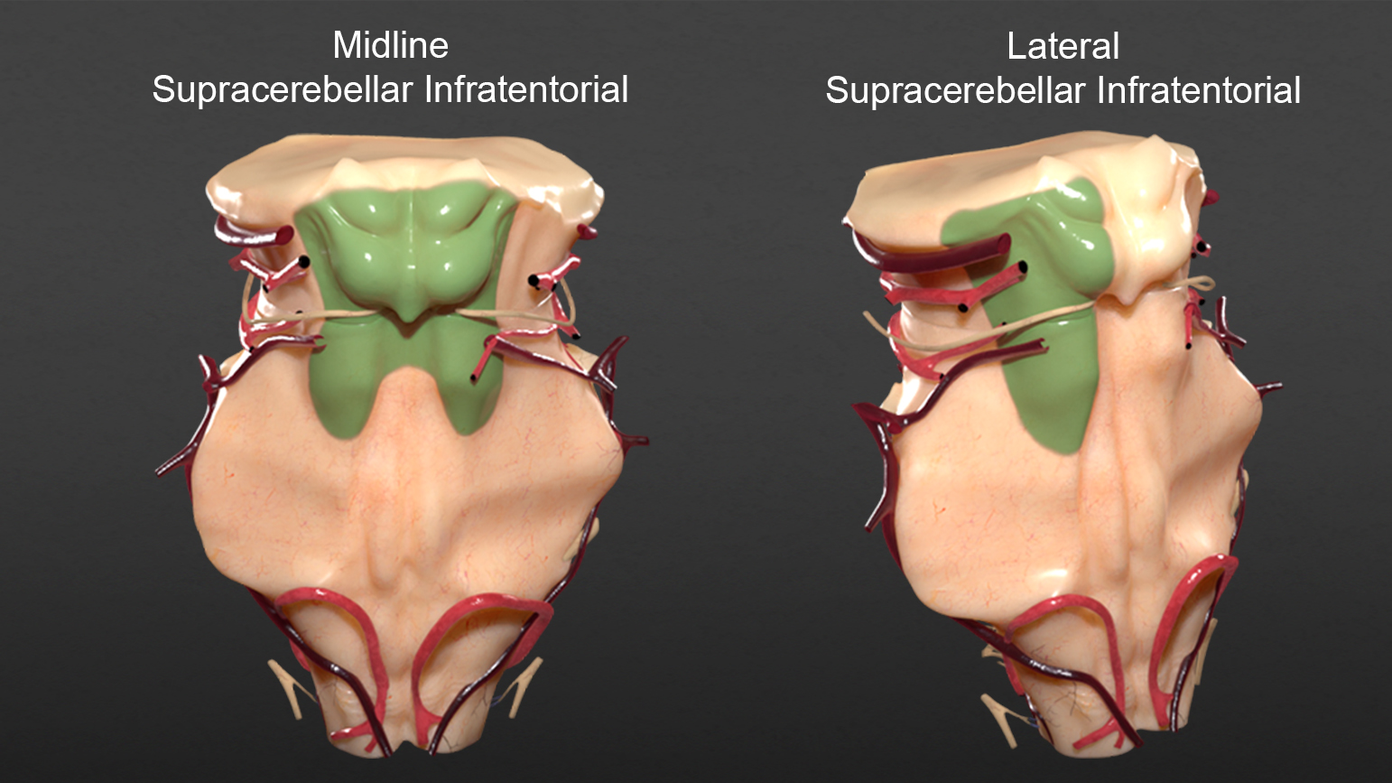 Figure 10:  The areas of exposure (green) for midline and lateral supracerebellar infratentorial cranial approaches are illustrated.