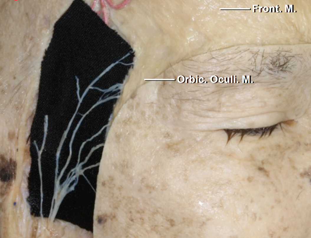 Figure 3: The locations of the frontalis branches of the facial nerve through the fat pad are demonstrated. These branches should be protected through the use of single layer myocutaneous flaps as well as intefascial and subfascial dissection through the fat pad. These maneuvers avoid postoperative frontalis palsy.     Please see more informaton below in the  additional considerations  section regarding the interfascial and subfascial techniques for preservation of the frontalis branch.      For more anatomical information related to the keyhole, please refer to the  Orbitozygomatic Craniotomy  chapter.