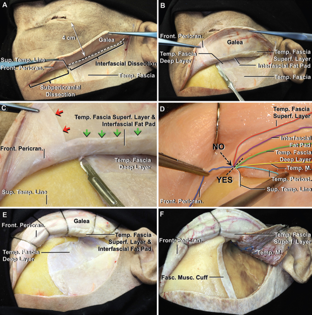 Figure 19: For the interfascial technique, approximately 4 cm above the lateral orbital rim (interrupted line), I incise through the superficial layer of the temporal fascia at the upper edge of the interfascial fat pad. This maneuver mobilizes the superficial layer of temporal fascia with the facial nerve branches on its outer surface and the adjacent frontal pericranium with the scalp flap (right upper image). Note the safe incision to avoid transecting the branches of the frontalis nerve (right middle image). The facial nerve branches are on the outer surface of the superficial layer of the temporalis fascia (images courtesy of AL Rhoton, Jr).