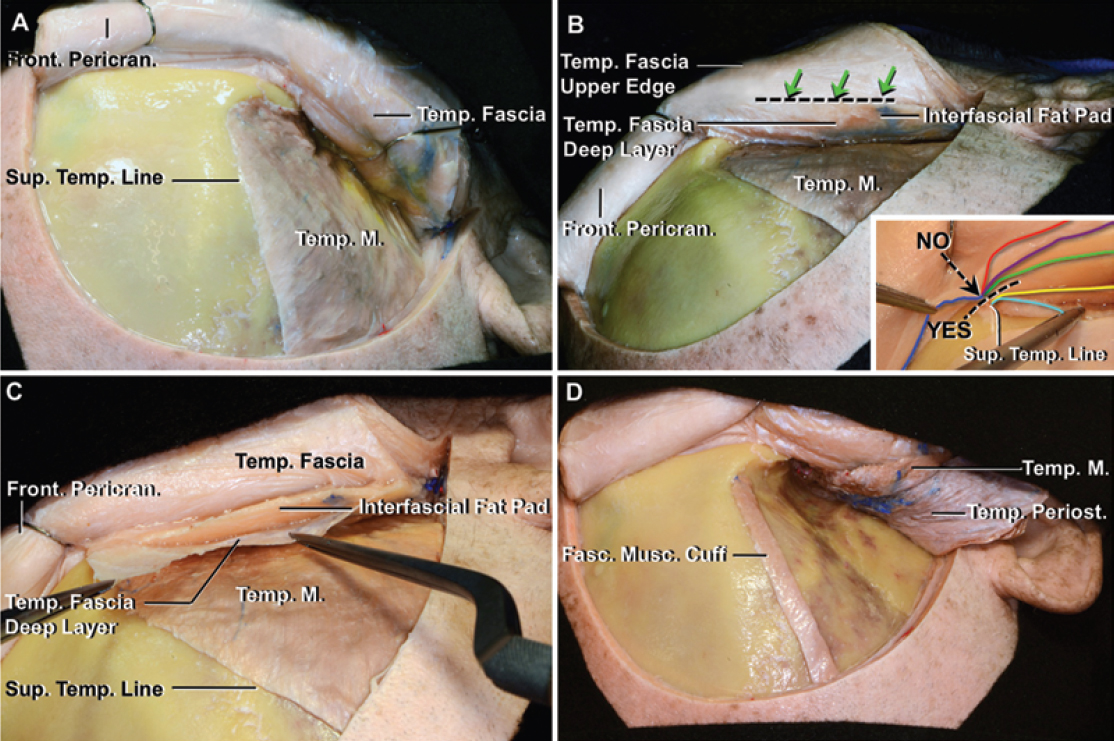 Figure 20: The subfascial technique elevates the deep surface of the temporal fascia from the outer surface of the temporalis muscle in continuity with the frontal pericranium. The superficial temporalis fascia, fat pad and deep temporalis fascia are all mobilized along with the scalp flap (right upper and left lower images) (images courtesy of AL Rhoton, Jr).