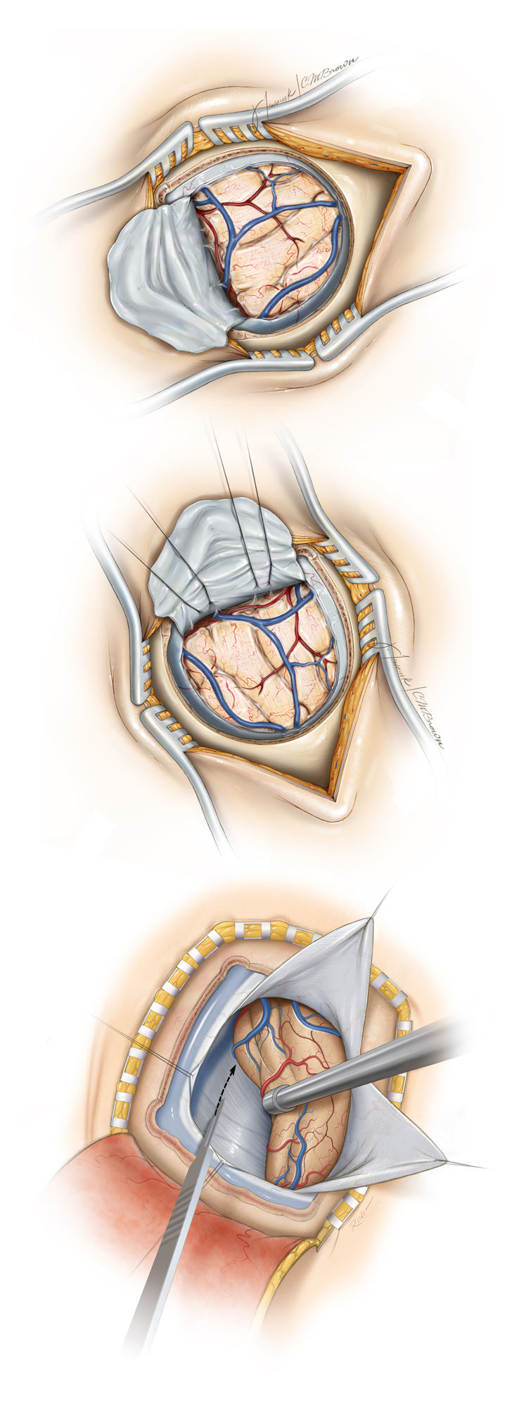 Figure 7: For convexity or intraparenchymal lesions, the dura is opened in a cruciate or curvilinear fashion based on the dural venous sinus(es) (top). If I plan to reach the interhemispheric space, the dura is opened in a curvilinear fashion centered over the superior sagittal sinus (middle), whereas for the pineal region or basal occipital surface (bottom), I open the dura in a cruciate fashion centered over both the sagittal and transverse sinuses.
