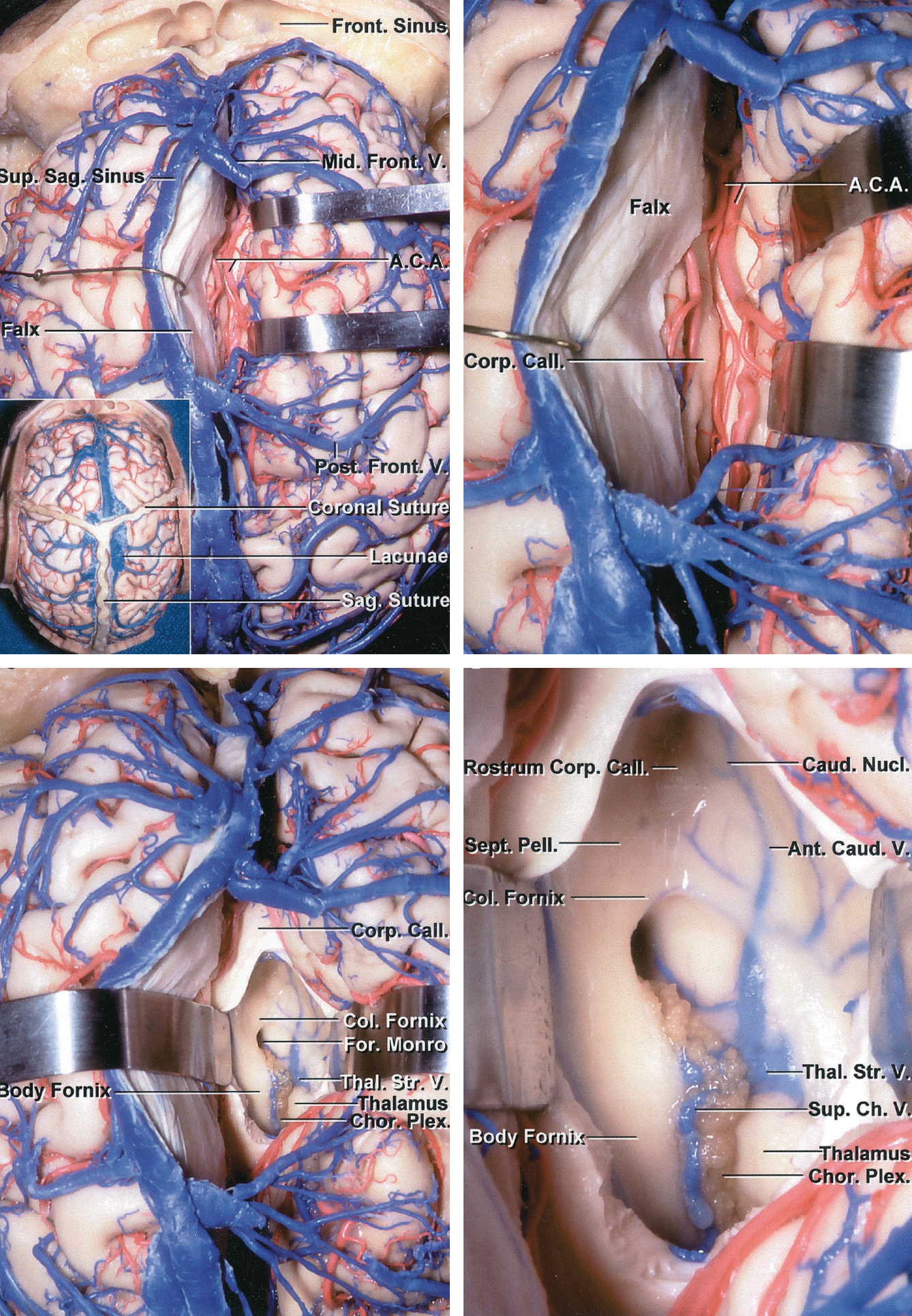 Figure 4: Superior view of the interhemispheric fissure. The right frontal lobe is retracted laterally to expose the bilateral distal anterior cerebral artery (A.C.A.) branches and the corpus callosum, which is bright white compared with the cingulate cortex (upper images).  The cortices of bilateral cingula can be very adherent to each other and may be mistaken for the corpus callosum.      The callosomarginal artery may be used as a road map to reach the pericallosal arteries. Notice that this view (left lower image) was achieved without sacrificing any bridging veins, but instead through untethering them from their surrounding arachnoid membranes. Callosotomy allows exposure of the ventricle (right lower image)(Images courtesy of AL Rhoton, Jr).