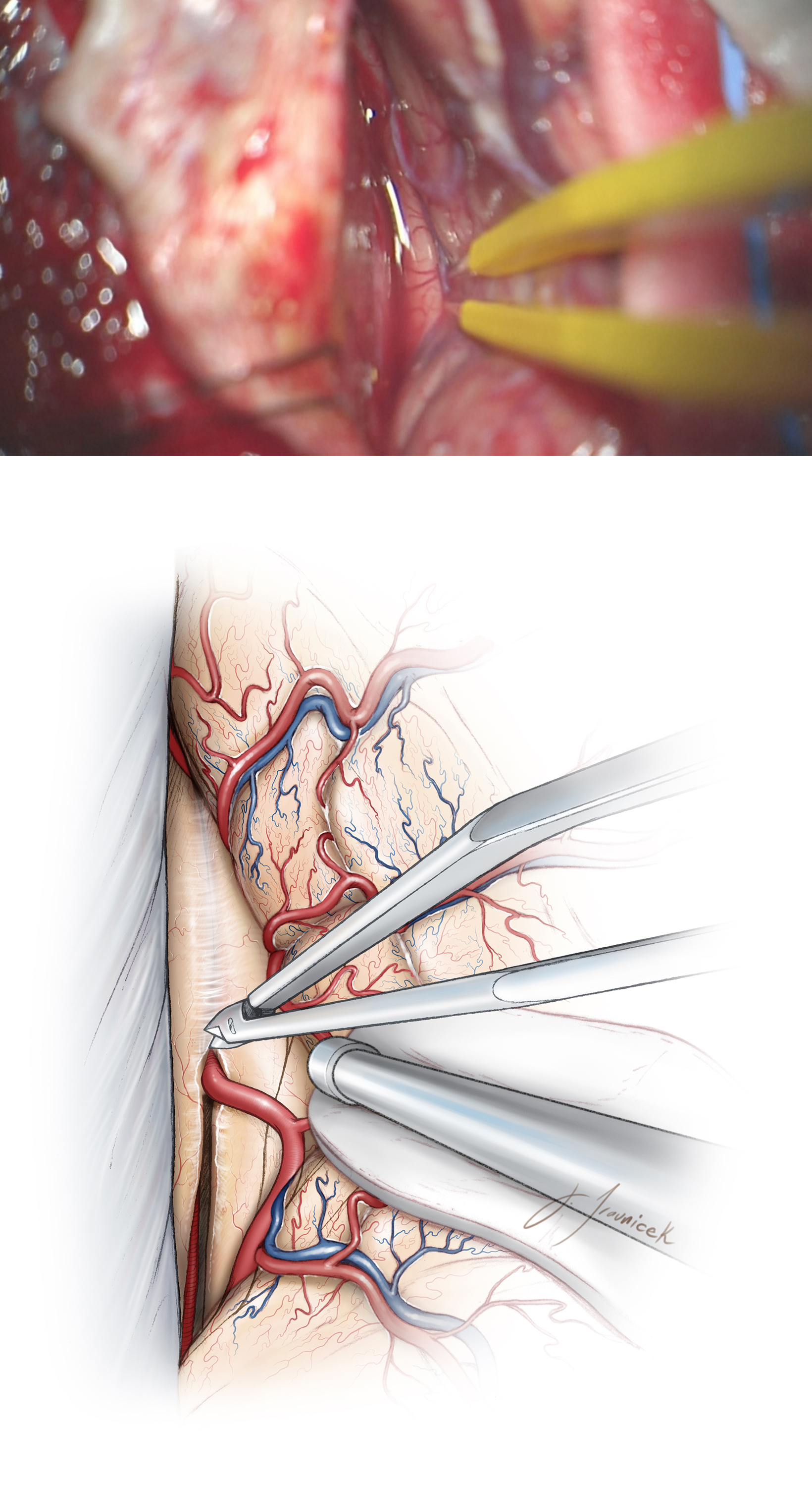 Figure 11: The subdural portion of the dissection is completed along the falx and the ipsilateral callosomarginal artery is traced along the midline to the level of the cingulum (top image). This artery will define the midline dissection planes so the surgeon can avoid subpial injury to the adherent cortices of the cingula through meticulous and sharp microsurgical techniques (bottom image).