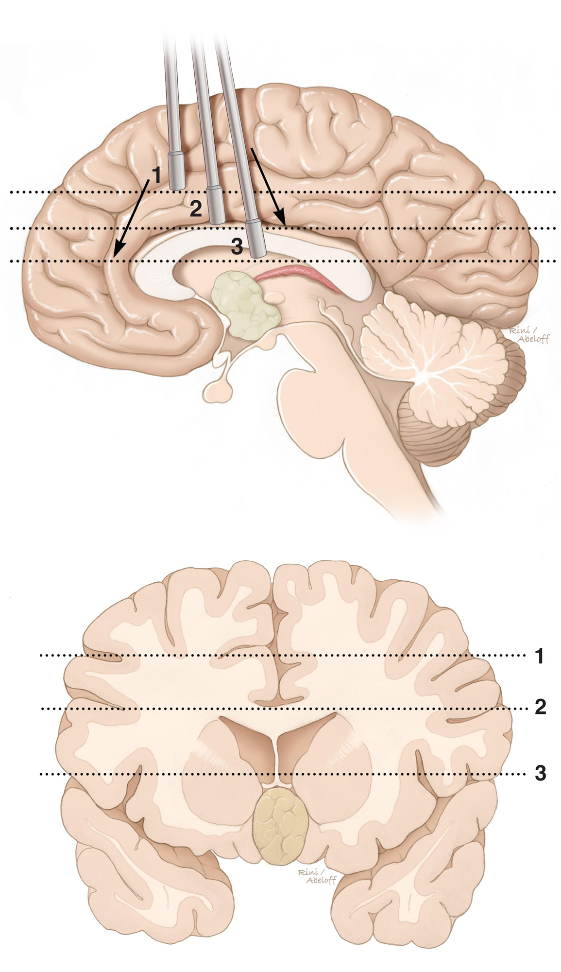 Figure 15: The roadmap through the interhemispheric trajectory toward the midline chambers is demonstrated. Note the sagittal perspective in the above image. It is easy for the surgeon to become disoriented and travel too anteriorly or posteriorly (arrows) along the interhemispheric space. Navigation can keep the surgeon on track. The hashed lines correspond to the landmark levels of dissection in the coronal illustration (bottom image). These levels include the cingulum (1), corpus callosum (2) and fornices (3). If the surgeon is not directing the center of dissection toward the surgical target, additional disruption of normal tissues is later necessary for re-directing the center of dissection.