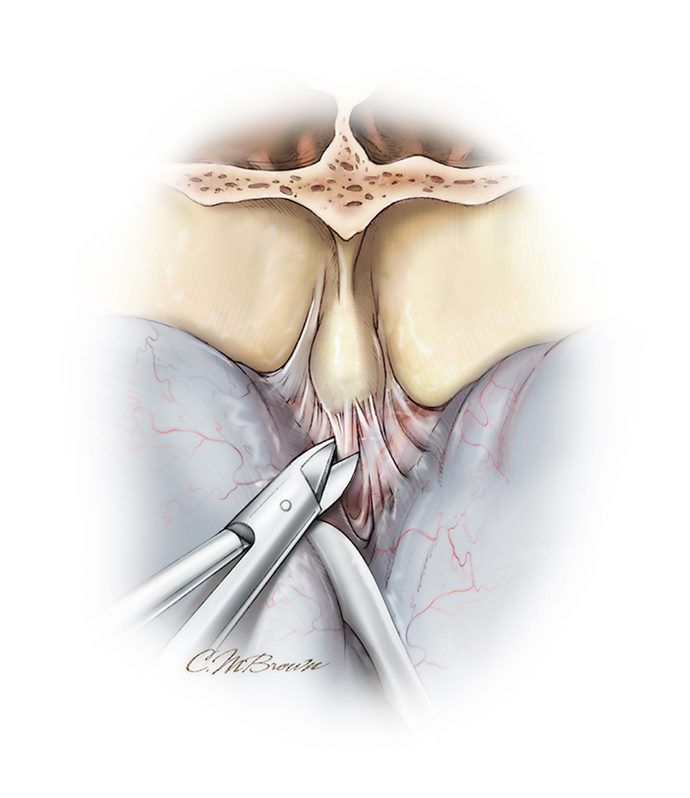 Figure 9: Pieces of temporalis muscle may also be used to fill the frontal sinuses. Further CSF drainage allows extradural dissection and lobar elevation away from the Crista Galli and exposure of the cribiform plate. The dura is mobilized from the orbital roof and Crista Galli using a #1 Penfield dissector.