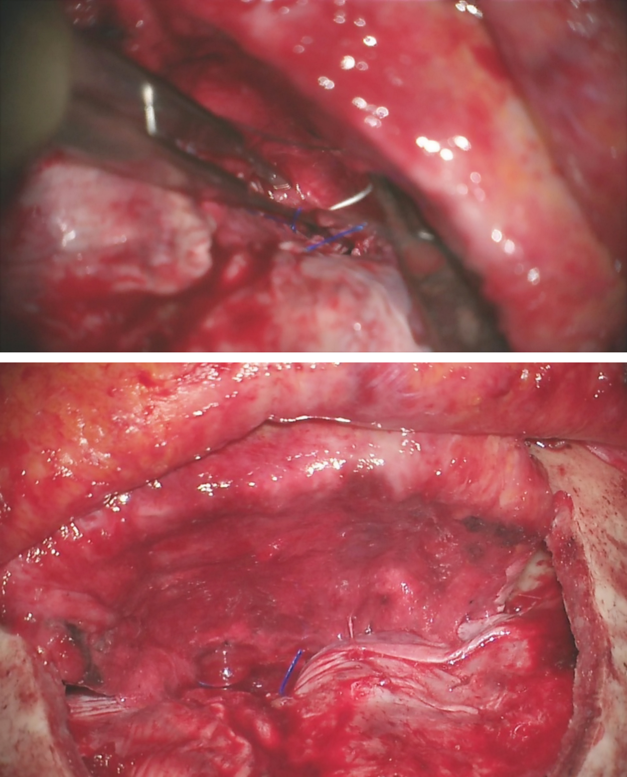 Figure 13: Excess pericranium is amputated and its edge is sutured to the dura along the floor of the anterior fossa as posteriorly as possible in a running fashion (top image). The pericranial graft provides a sheet of vascularized tissue to separate the intracranial space from the nasal cavity (bottom image).