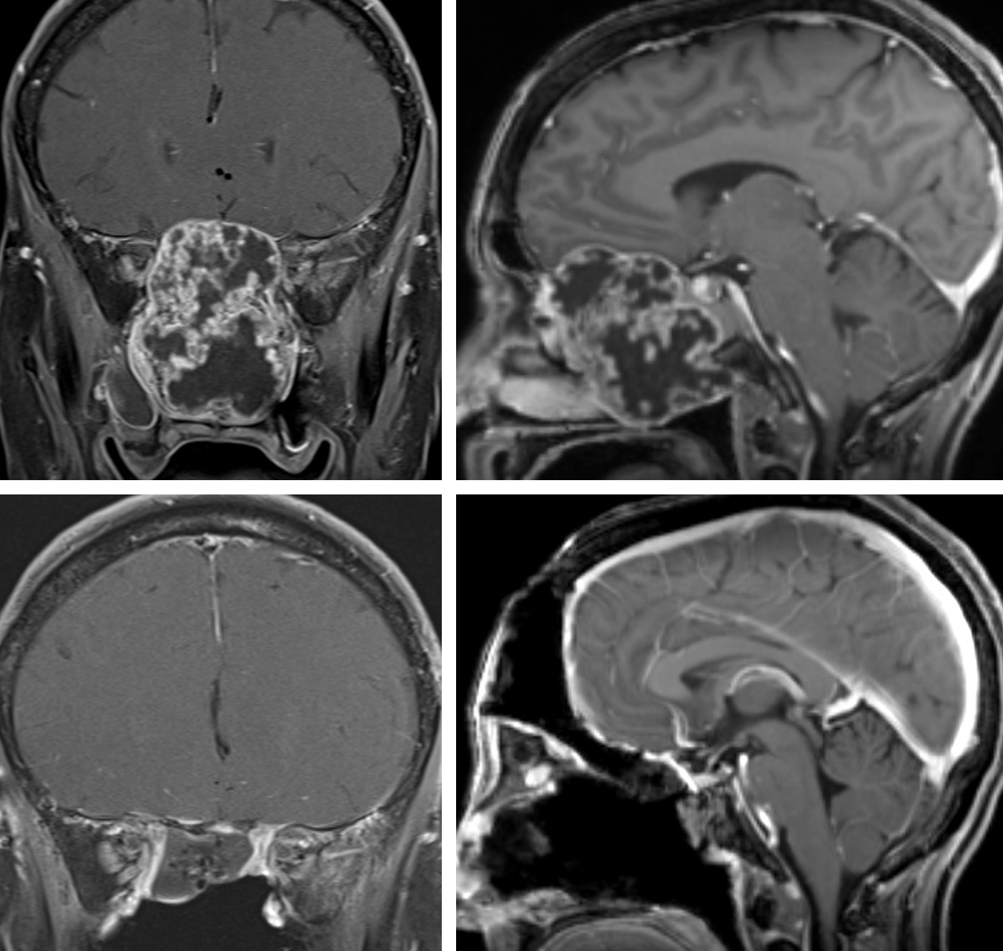 Figure 1: Anterior skull base chondrosarcoma with extensive invasion of the nasal cavities (upper images). This case illustrates appropriate indications for a bifrontal craniotomy. A transnasal approach was deemed inappropriate because the midline septal invasion of the tumor rendered the nasoseptal flap unavailable for skull base reconstruction. The bottom postoperative images demonstrate gross total resection of the mass.