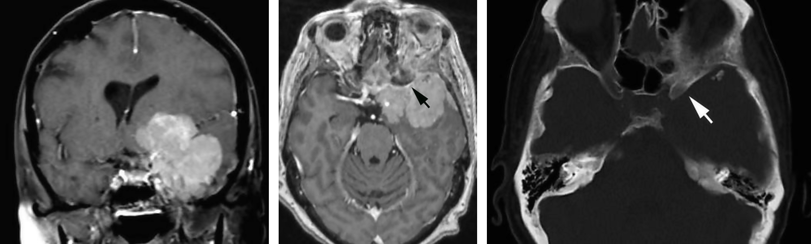 Figure 2: Medial sphenoid wing meningioma and associated hyperostosis (tumor-infiltrated) clinoid on MR (black arrow) and CT (white arrow) imaging.