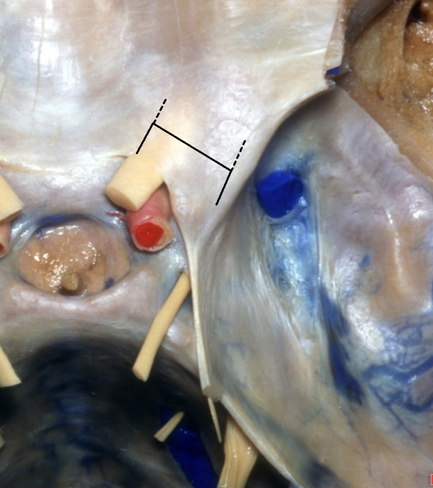 Figure 7: As an alternative, dural opening can be performed over the bone on the lateral aspect of the anterior clinoid and the medial aspect of the optic canal through the falciform ligament in a rectangular or H-shaped fashion (hashed black line). The dural flap is then reflected over the neurovascular structures in order to protect them. After clinoidectomy, the dural flap is reflected back and sealed to decrease the the risk of a CSF leak (Image courtesy of AL Rhoton, Jr).