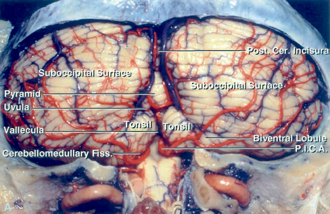 Figure 2: Removal of the suboccipital bone exposes the corresponding dural sinuses. The surface anatomy of the cerebellum is shown (Image courtesy of AL Rhoton, Jr).