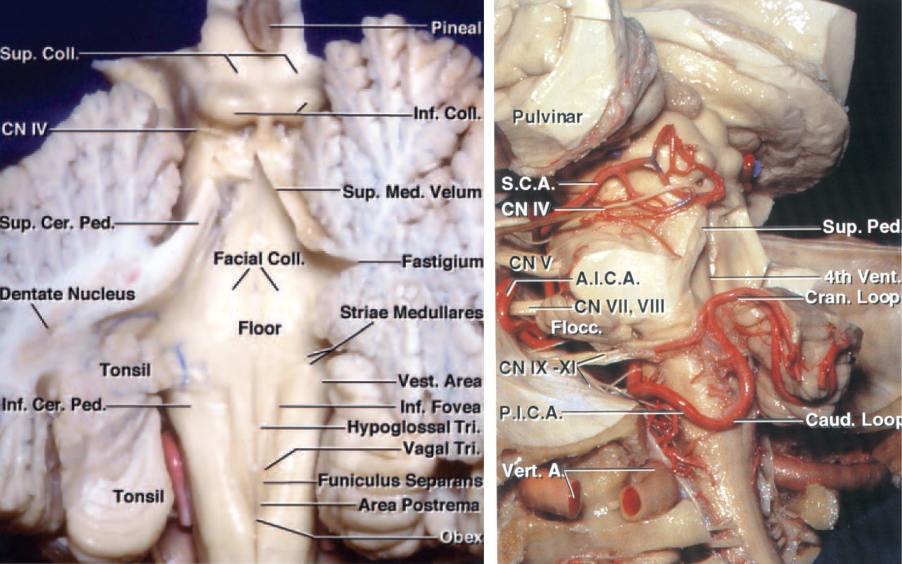 Figure 4: The functional anatomy of the fourth ventricular floor is shown (left image). The route of the superior cerebellar artery (SCA), the anterior inferior cerebellar artery (AICA) and the posterior inferior cerebellar artery (PICA) after removal of the cerebellum is demonstrated (right image—oblique view)(Images courtesy of AL Rhoton, Jr).