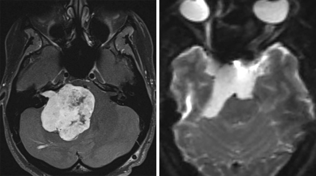 Figure 1:  Giant acoustic tumors (left) and ventrally located epidermoids (right) can be removed though an expanded retrosigmoid approach.