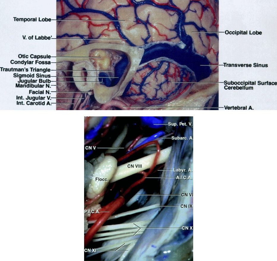 "Figure 2: The transverse and venous sinuses and their relationships to bony anatomy including the mastoid tip and groove (top image). Exposure of cerebrovascular structures within the right cerebellopontine (CP) angle through the retromastoid approach in demonstrated (bottom image). Please note that the trigeminal nerve is ""deeper"" within the operative field and further away from the surgeon while the CN VII/VIII complex is more superficial and follows an oblique inferior to superior trajectory (Images courtesy of AL Rhoton, Jr)."