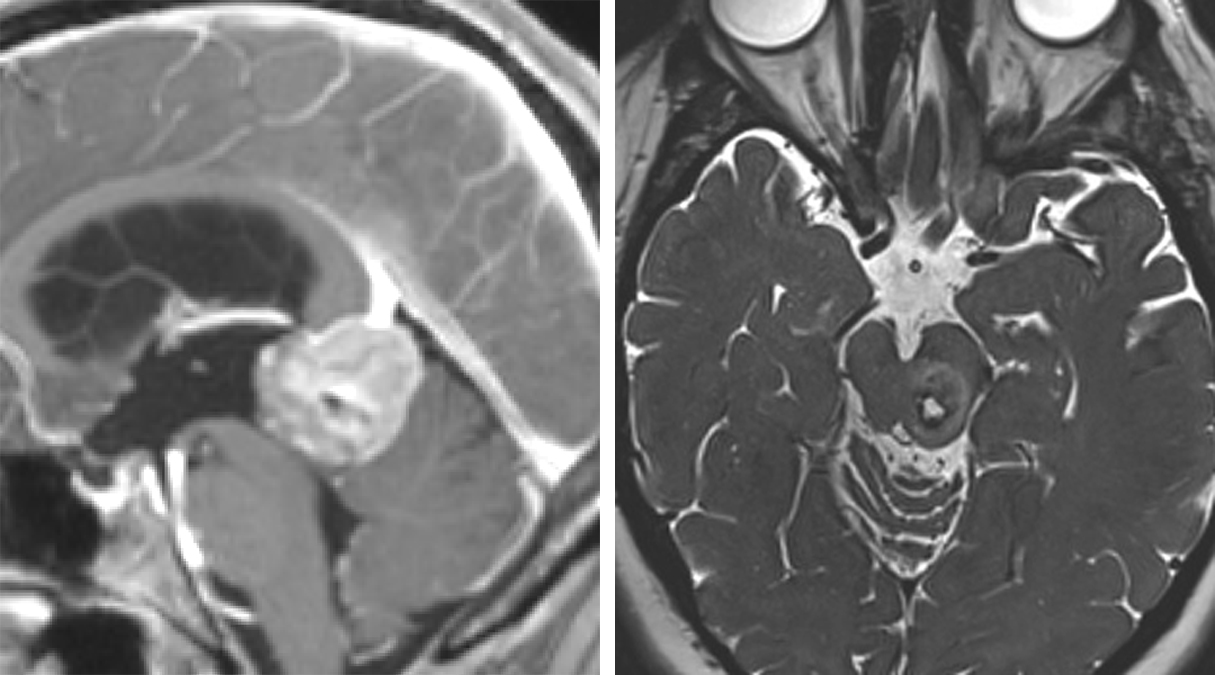 Figure 2: Large lesions in the pineal region (left image) and posterolateral mesencephalon (right image) can be readily exposed through the supracerebellar route.