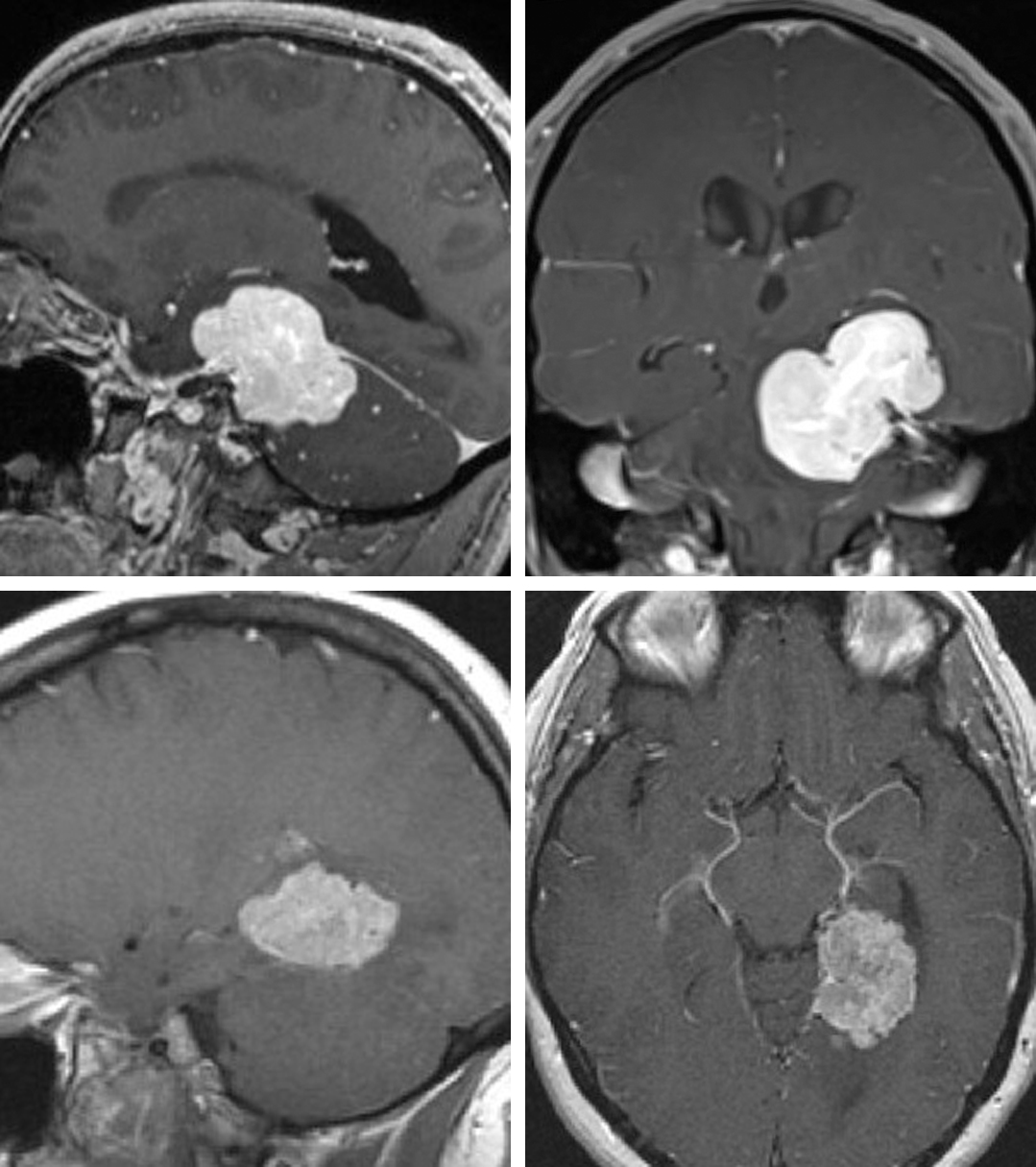 Figure 3: Transtentorial petrous apex meningiomas (upper images) and medial tentorial meningiomas (lower images) may be resected through a single-stage surgery using the paramedian supracerebellar transtentorial route.
