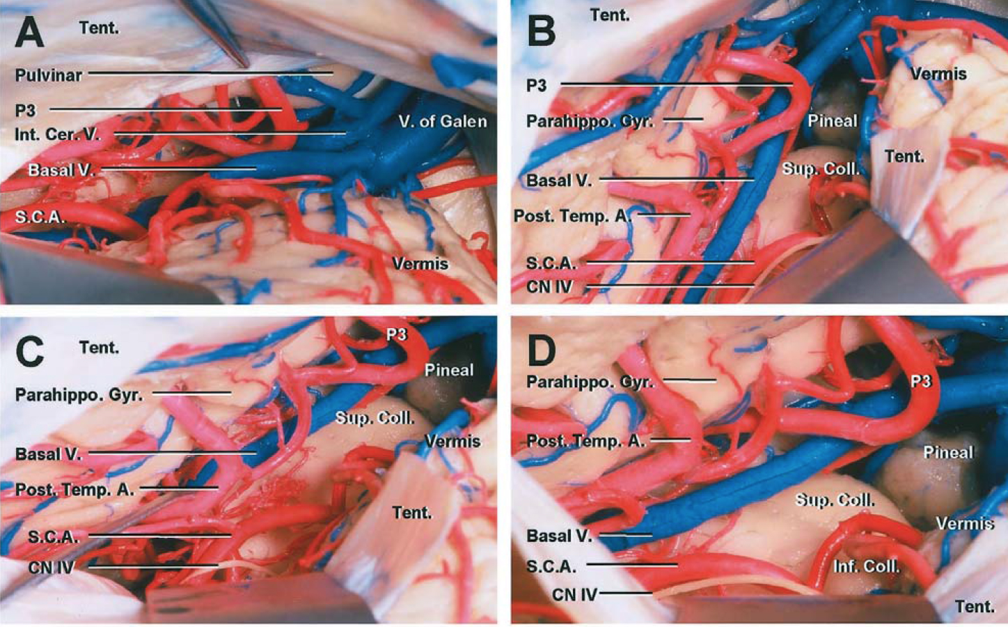 Figure 8: Sectioning a window of the left tentorium through a paramedian supracerebellar craniotomy exposes the posterior ambien cisterns, basal temporal lobe, and the relevant arterial anatomy (B, C, and D). Note the generous exposure of the posterior parahippocampus and distal posterior cerebral artery branches through this route (Images courtesy of AL Rhoton, Jr).