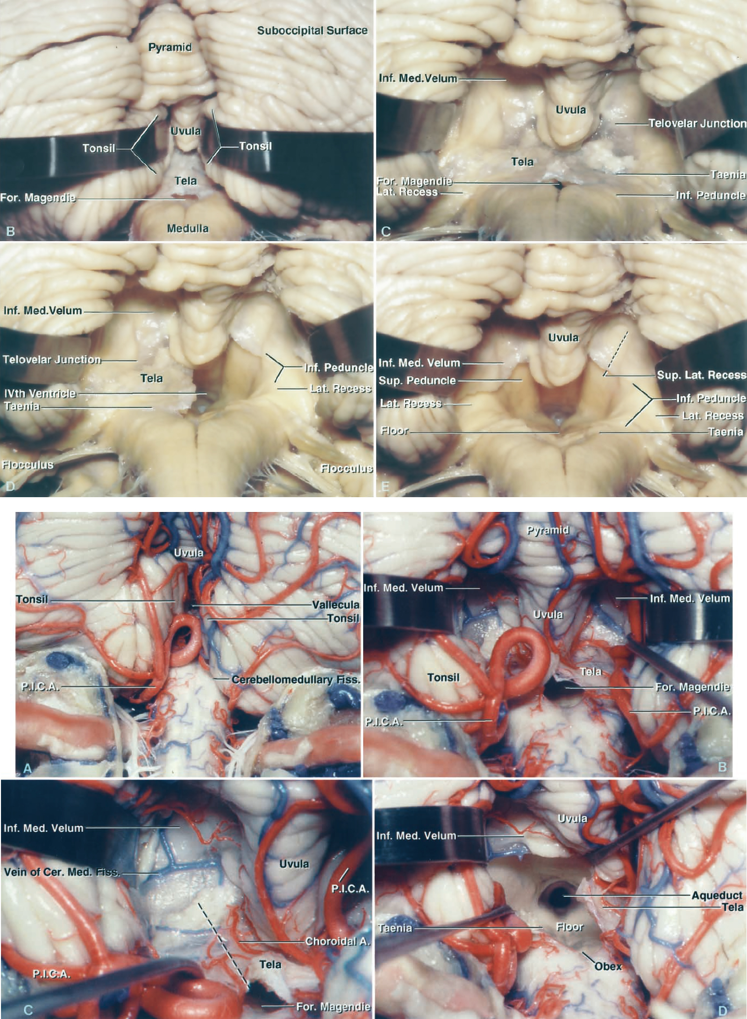 Figure 5: More images demonstrating the operative steps in the telovelar approach through incising the tela choroidea and inferior medullary velum. (Images courtesy of AL Rhoton, Jr.)