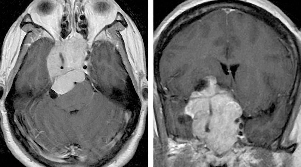 Figure 4: Atypical presentation of a prolactinoma in a patient with seizures. Please note the laterality of the mass and its resemblance to a meningioma on imaging.  This case underlines the importance of preoperative evaluation of the prolactin level to avoid unnecessary surgery.