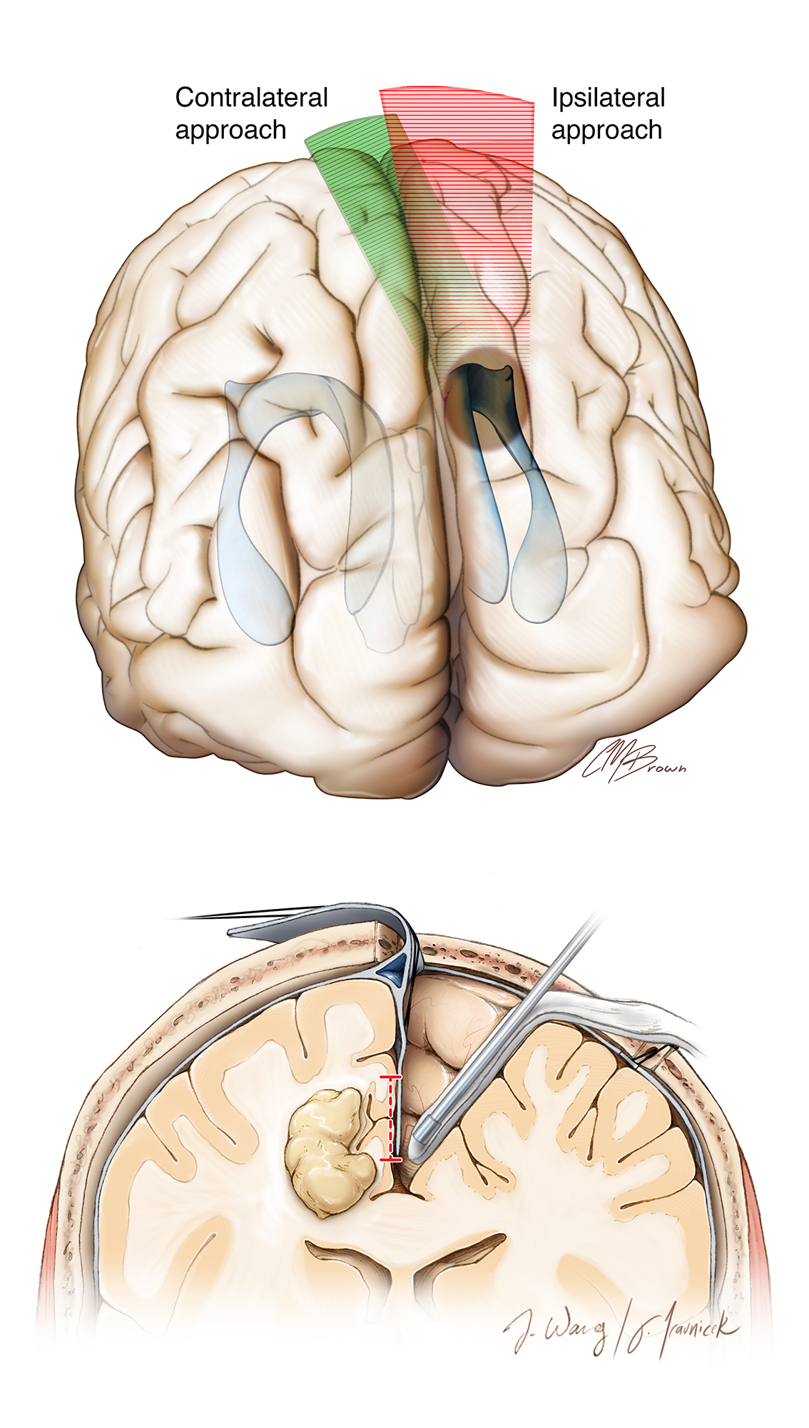 Figure 1: The contralateral transfalcine cross-court corridor (green zone) affords more flexible working angles for lesions that extend laterally. This modification of the ipsilateral interhemispheric route reduces retraction on the ipsilateral hemisphere (red zone) while reaching the lateral pole of the tumor (top). An overview of the technical details for this modifed route is described in the second illustration (bottom).