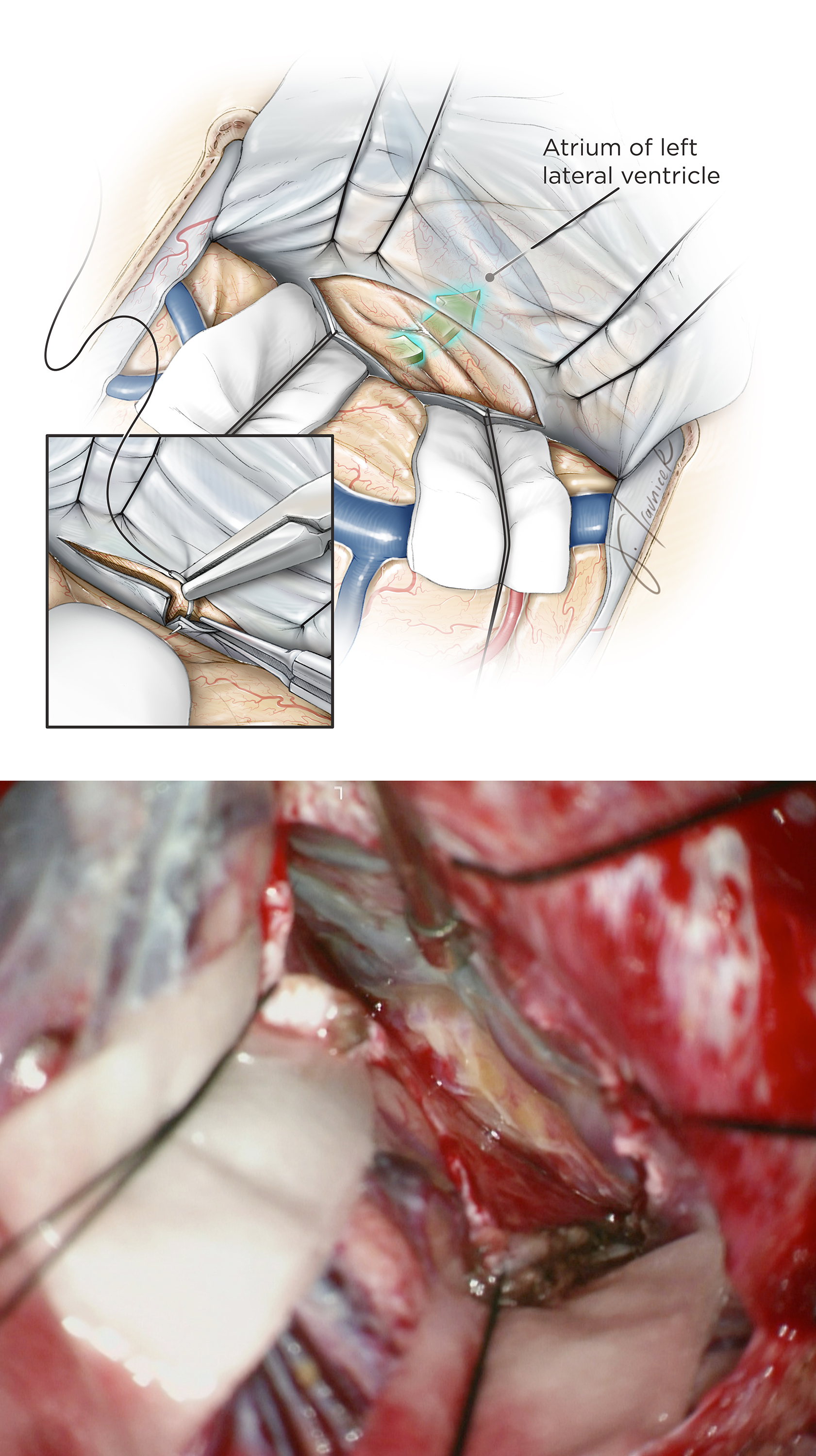Figure 12: Additional sutures are placed on the falcine dural flaps (inset image) to mobilize the contralateral (to the lesion) hemisphere and increase the transfalcine working angle toward the ipsilateral atrium (upper image). Corresponding intraoperative image for exposing the left precuneus (at the tip of suction apparatus) is included (lower image). Cottonoid patties protect the contralateral unaffected hemisphere against the gentle retraction vector of the sutures. Fixed retractors are not used.
