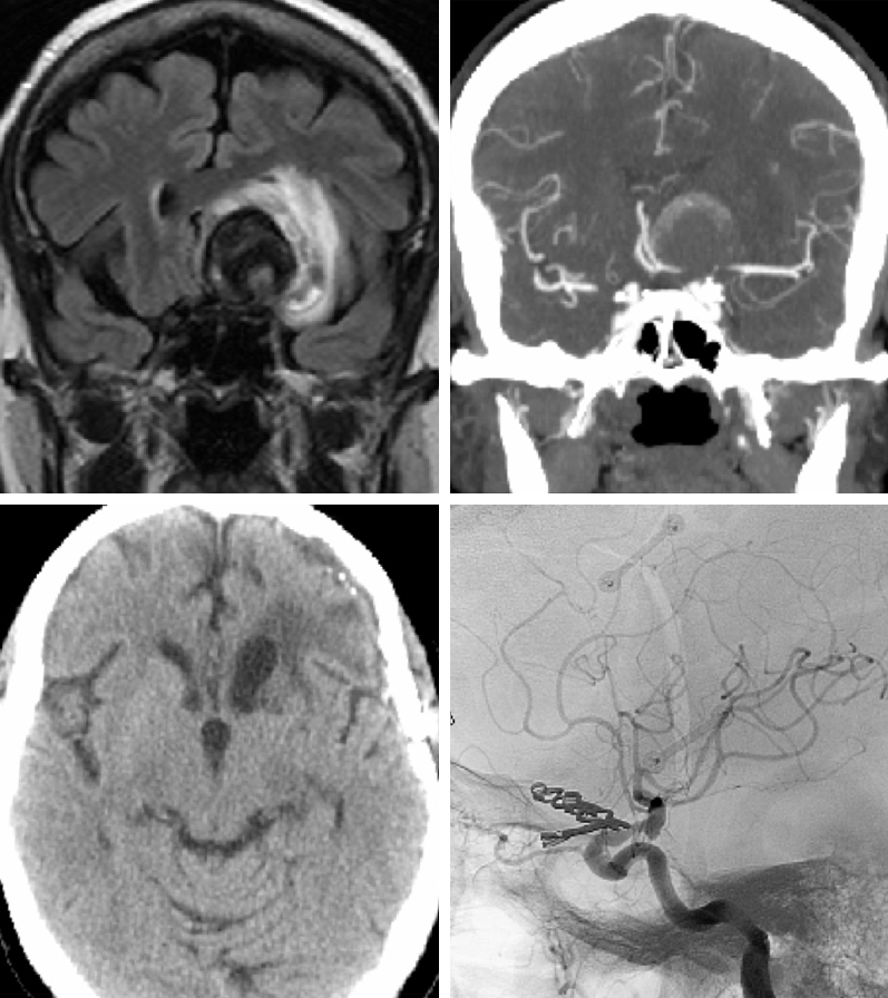 Figure 1: MRI demonstrates the thrombus within the aneurysm sac and surrounding mass effect and edema (top, left). CT angiogram reveals minimal blood flow within the sac (top, right). Postoperative CT scan shows partial resolution of the edema (bottom, left). Angiography confirms obliteration of the aneurysm via multiple clips (bottom, right).