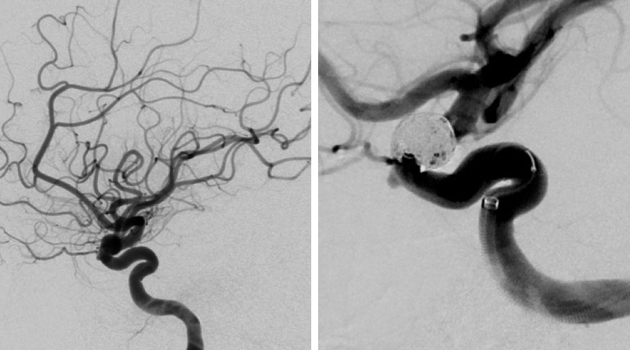 Figure 2: The left ICA demonstrates a superiorly projecting, bilobed aneurysm measuring 7mm (left image). Postoperative angiogram (right) demonstrates total occlusion of the aneurysm. Flow diversion has recently become the preferred intervention for paraclinoid aneurysms.